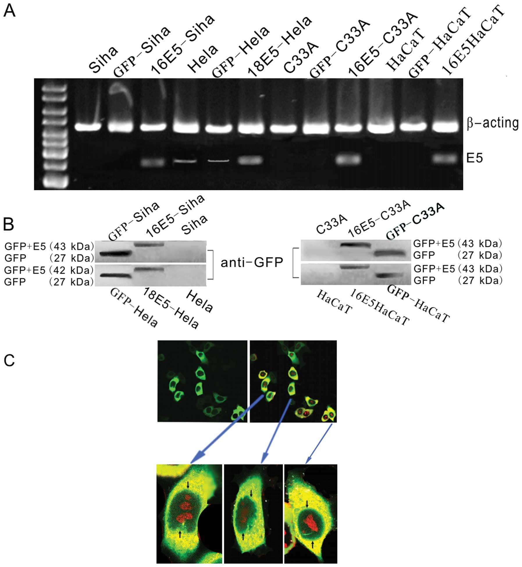 Human papillomavirus 16/18 E5 promotes cervical cancer cell