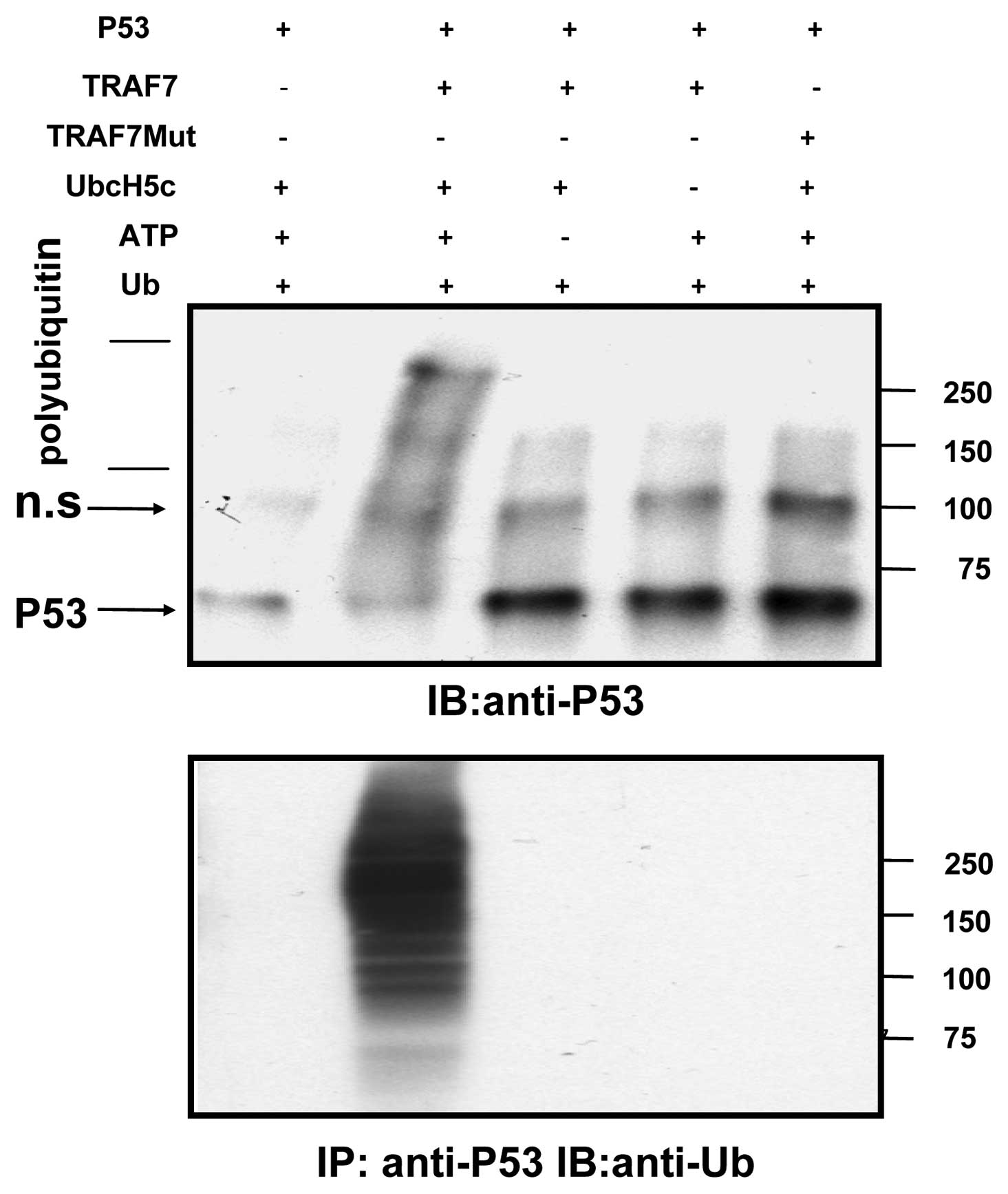 OMIM Entry - 113705 - BREAST CANCER 1 GENE; BRCA1