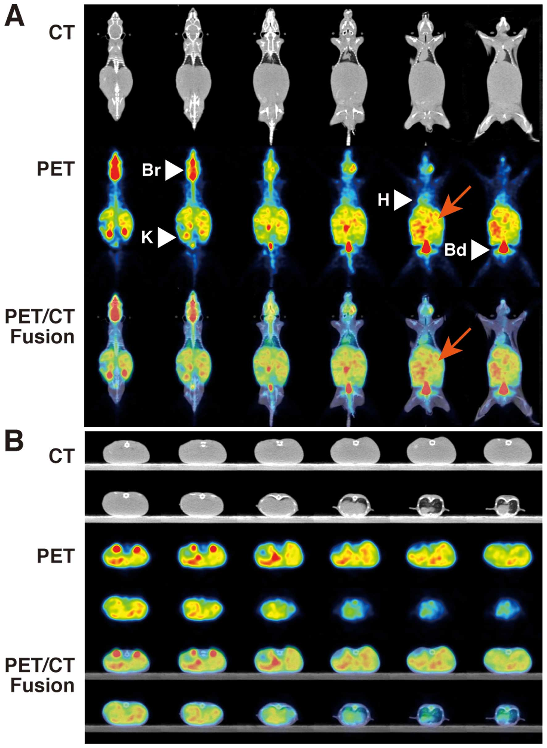 A New In Vivo Model To Analyze Hepatic Metastasis Of The Human Colon Cancer Cell Line Hct116 In Nod Shi Scid Il 2rgnull Nog Mice By 18f Fdg Pet Ct