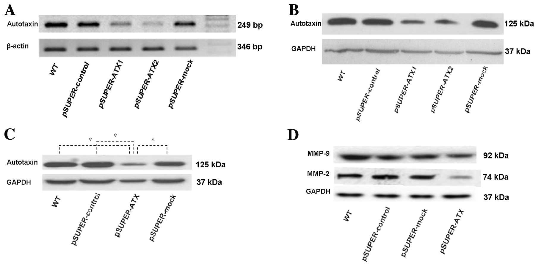 Short hairpin RNA targeting autotaxin reduces human