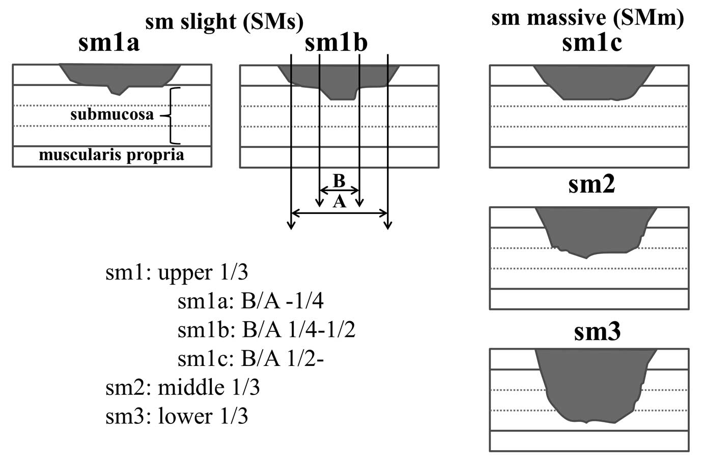 magnifying narrow band imaging of surface patterns for diagnosing classification of the degree of submucosal invasion we divided submucosal cancers into sm1 sm2 and sm3 according to the depth of invasion