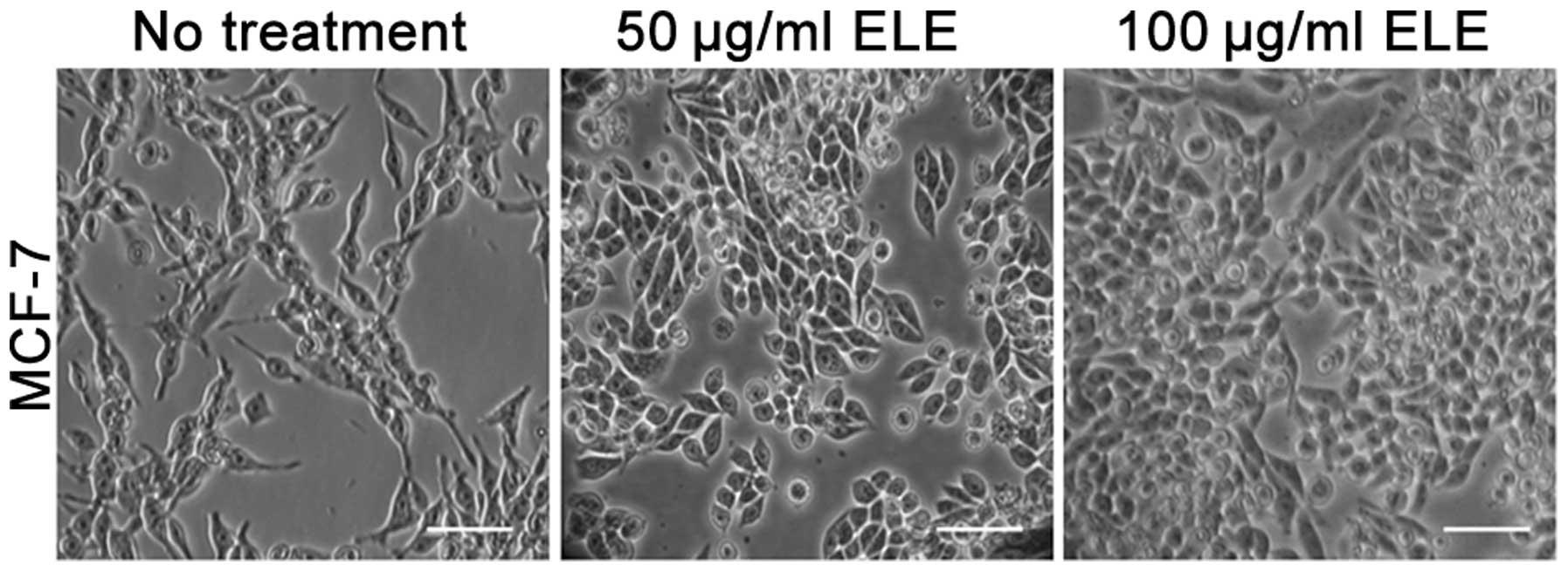 β-elemene decreases cell invas...