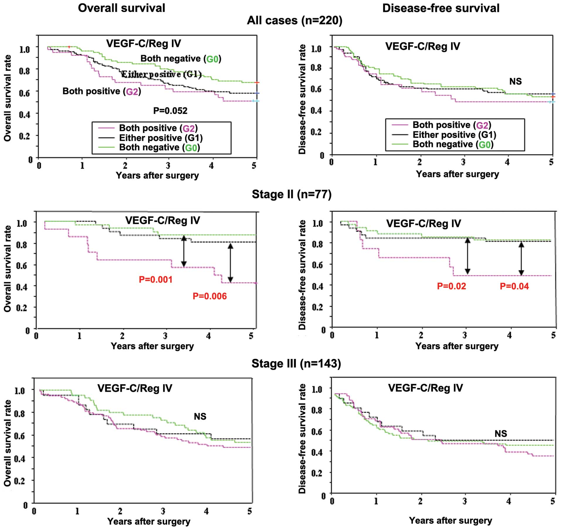 New Molecular Staging With G Factors Vegf C And Reg Iv By Supplementing Tnm Classification In Colorectal Cancers