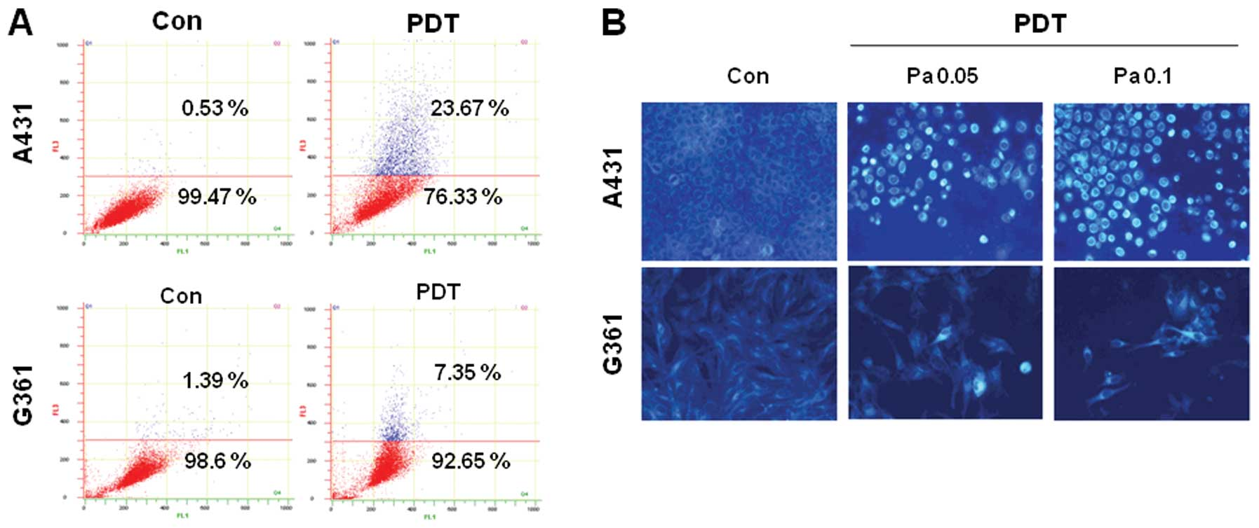 Pheophorbide A Mediated Photodynamic Therapy Induces