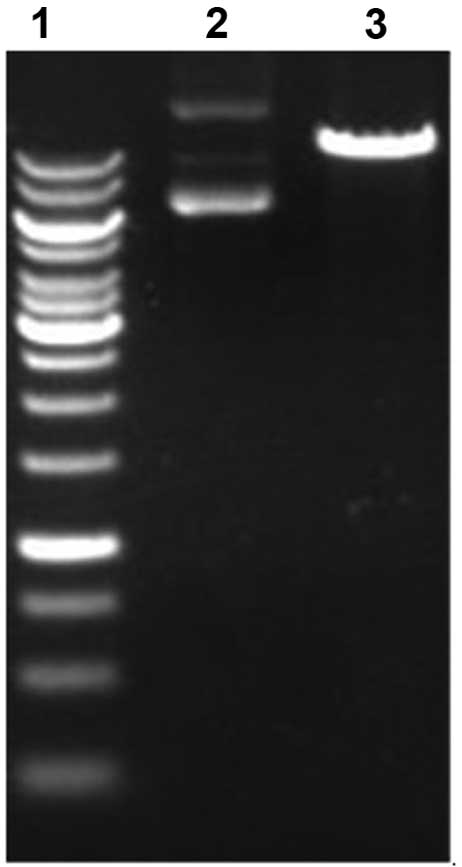 a preliminary study on the construction of double suicide gene delivery vectors by mesenchymal