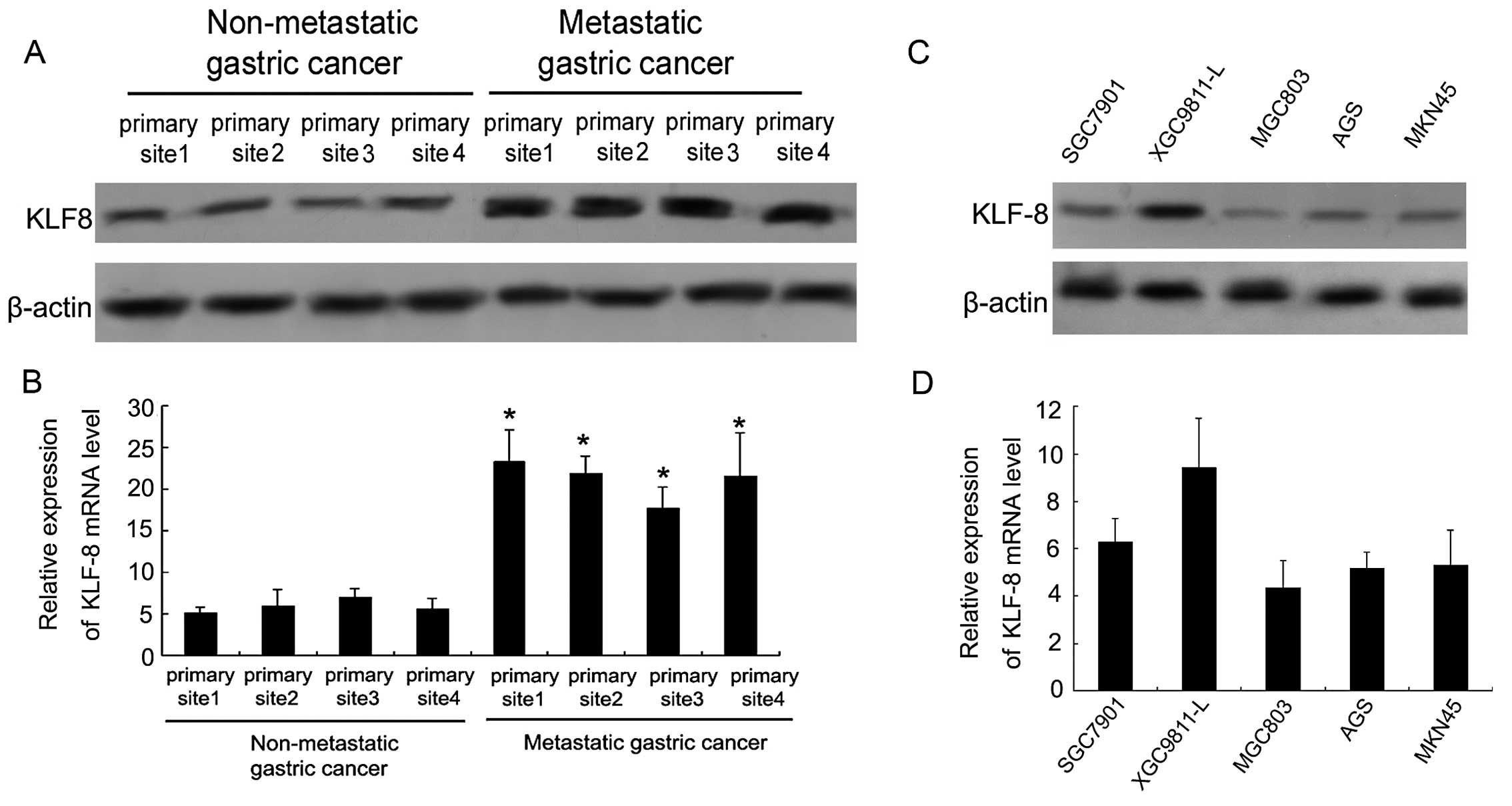 Krüppel-like factor 8 involved in hypoxia promotes the ...