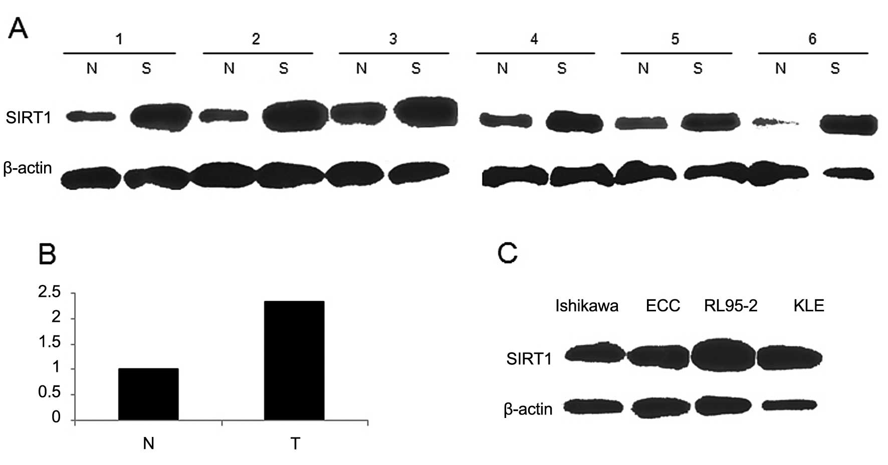 Sirt1 promotes endometrial tumor growth by targeting srebp1 and a western blot analysis of sirt1 expression in 6 selected human ec tissues t paired with adjacent normal endometrium tissues n t compared with n biocorpaavc Gallery