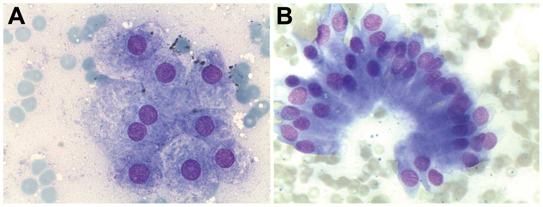 macrophages breast 28 fna cytology