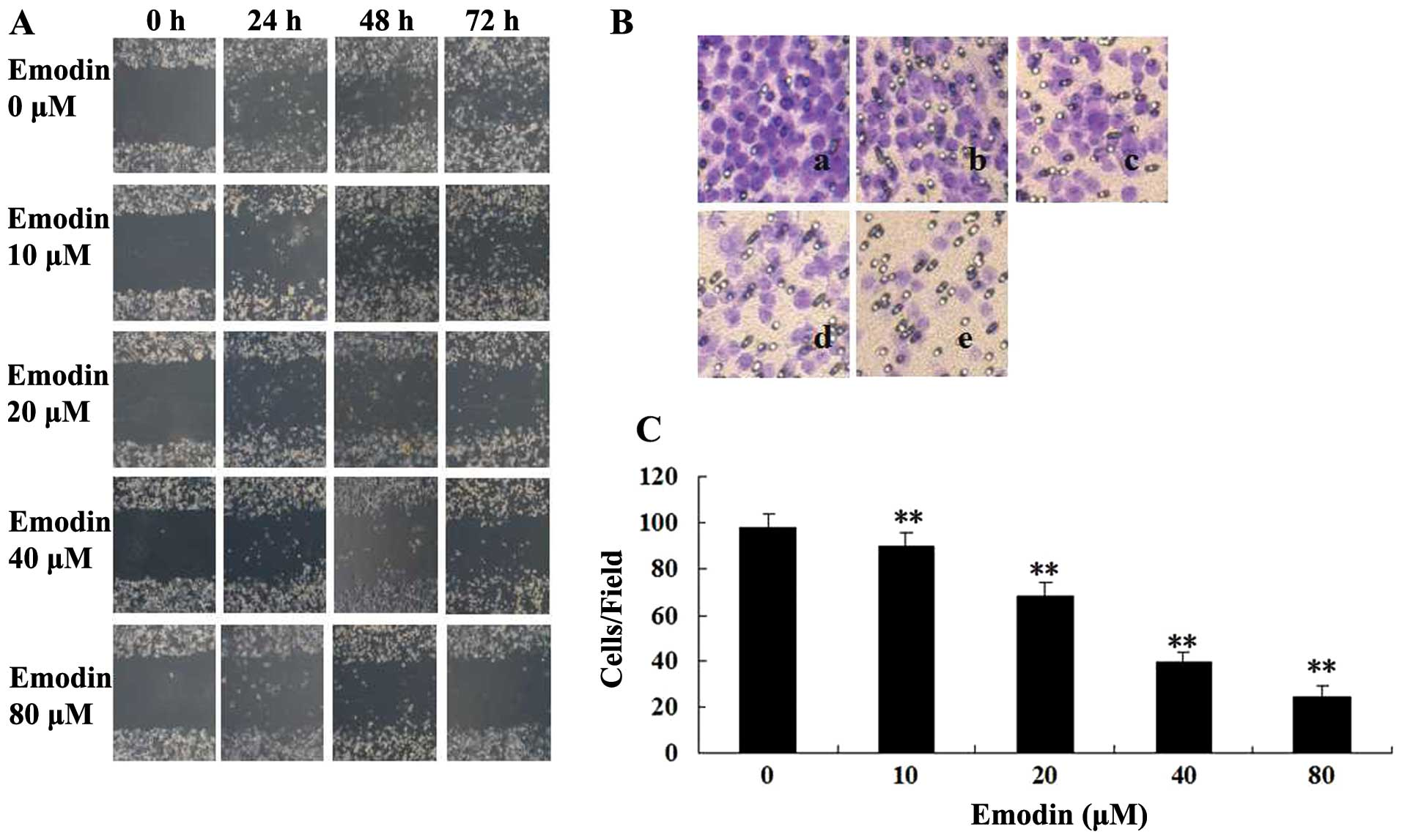 MDA MB 231 cells were treated with a 0 b 10 c 20 d 40 or e 80 μM of emodin for 24 h a Blank no added cells C Percent of cell migration