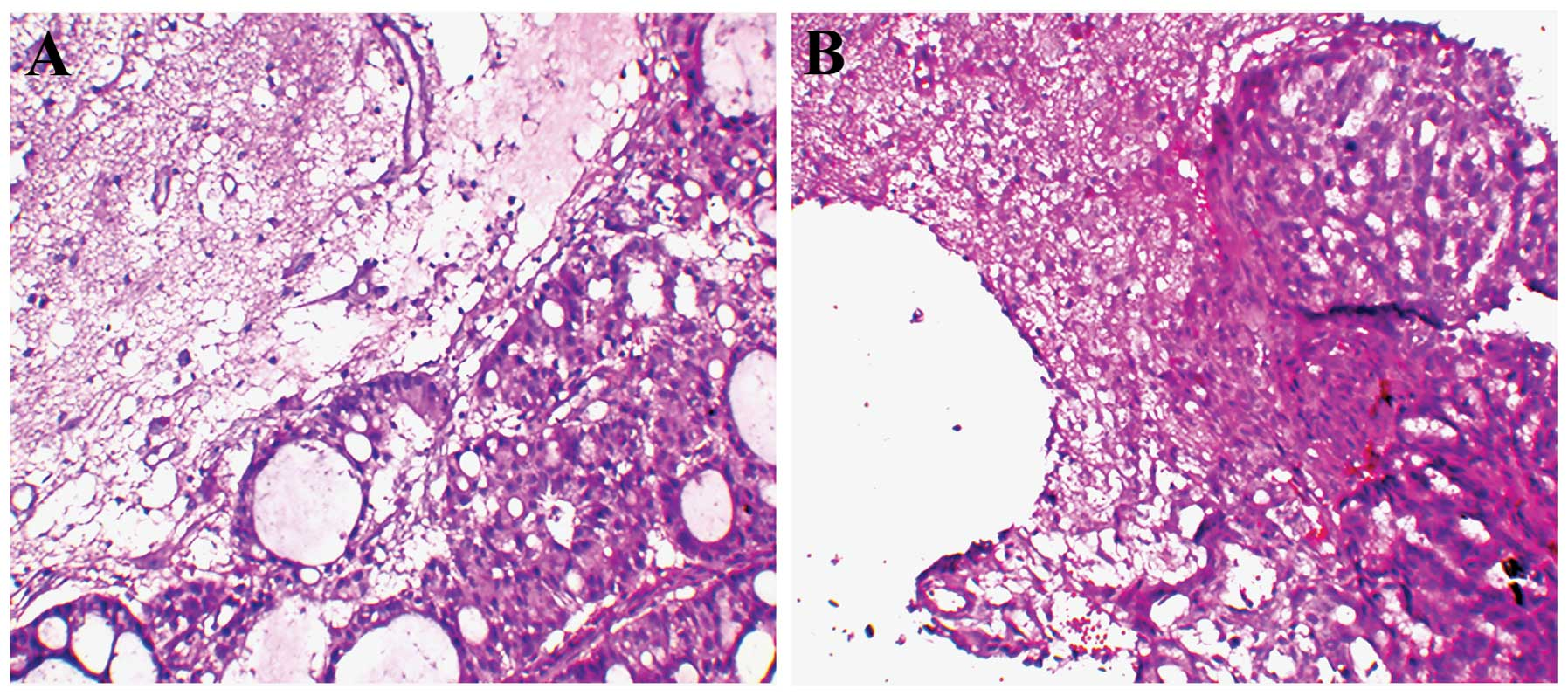 Overexpression of adenylate cyclase associated protein 1 may predict hematoxylin and eosin he staining of histological tissues he in brain metastasis of non small cell lung cancer nsclc patients ccuart Gallery