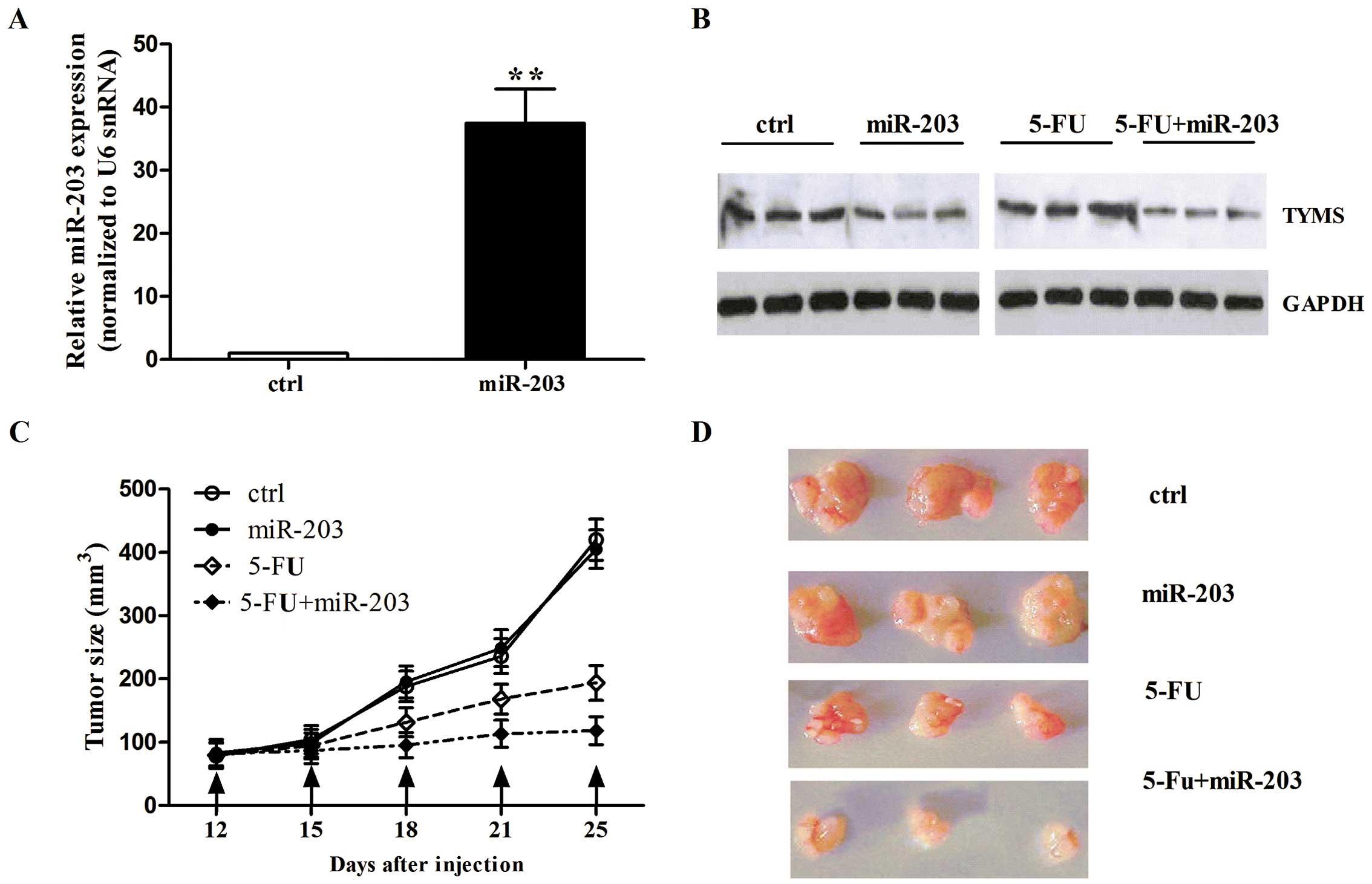 Colorectal cancer 5- fu