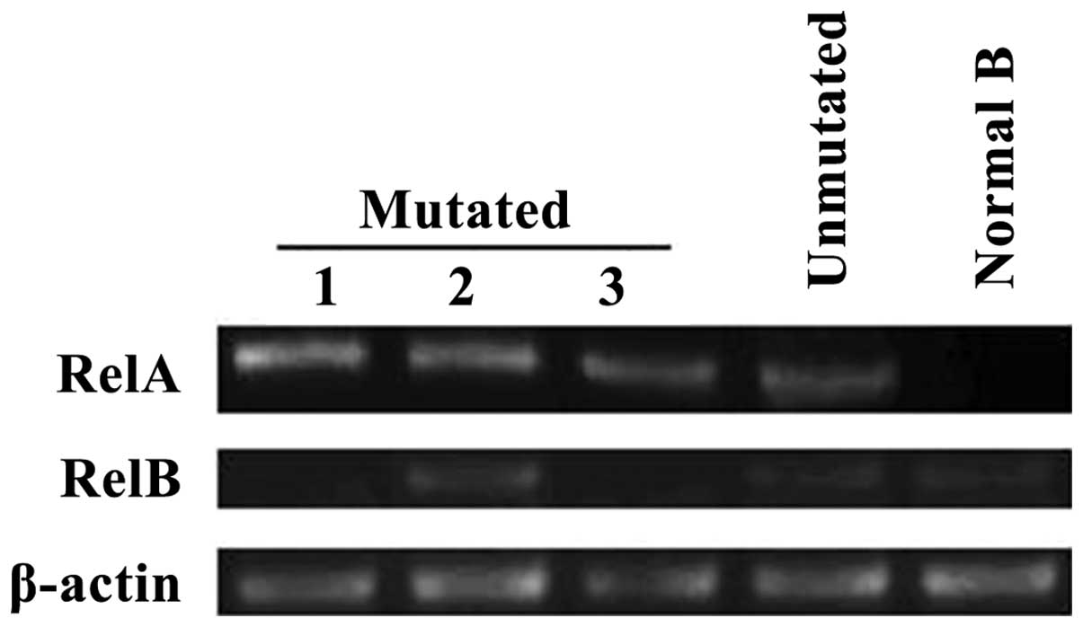 Constitutive activation of NF-κB signaling by NOTCH1 mutations in