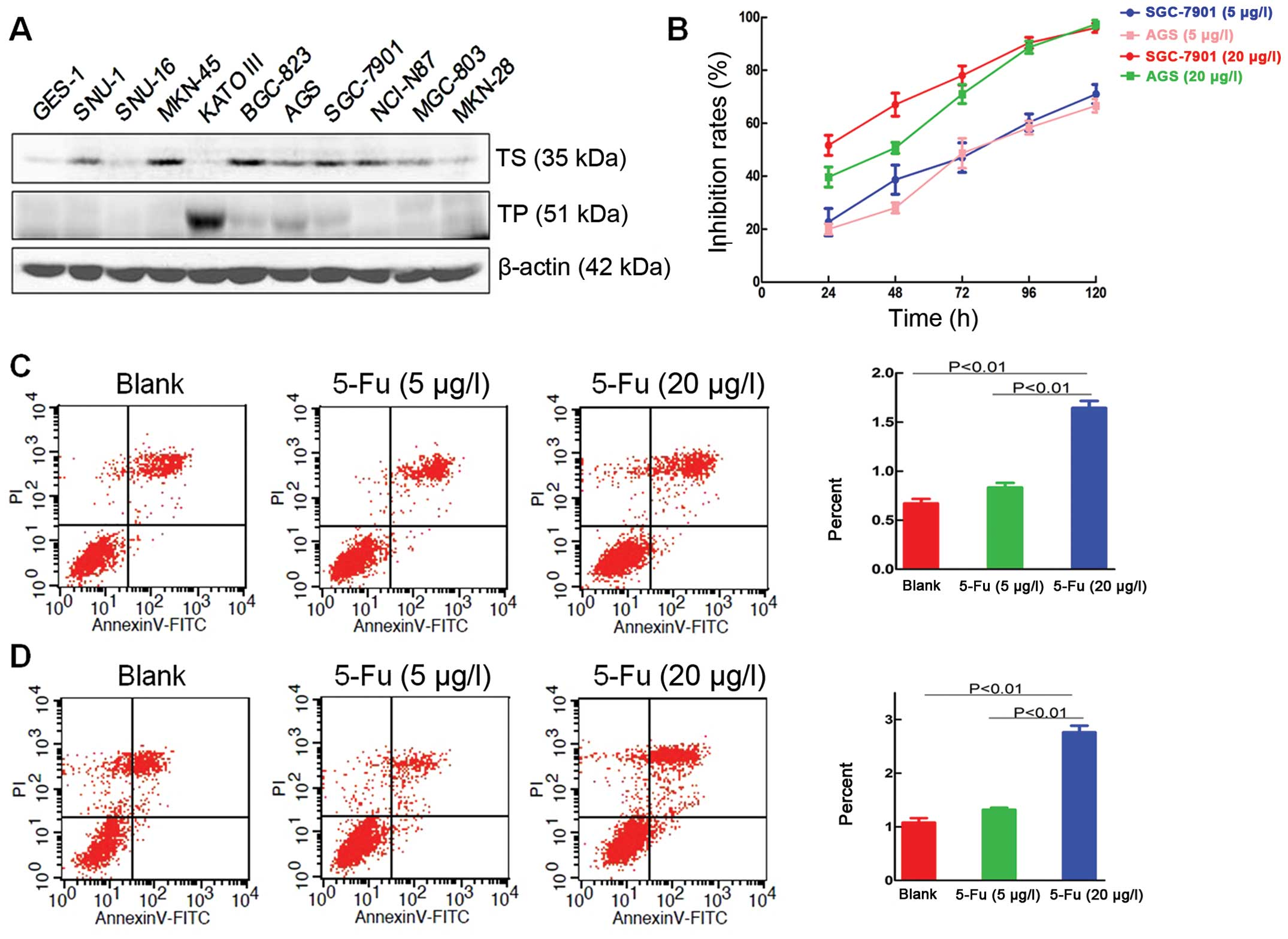 Capecitabine Metronomic Chemotherapy Inhibits The Proliferation Of Gastric Cancer Cells Through Anti Angiogenesis