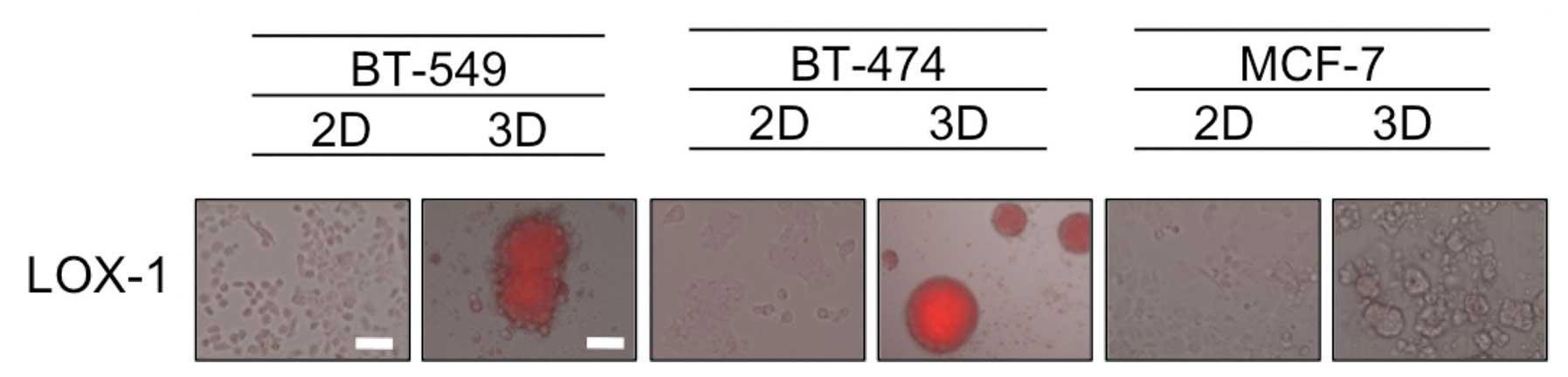 Comparison of 2D- and 3D-culture models as drug-testing platforms ...