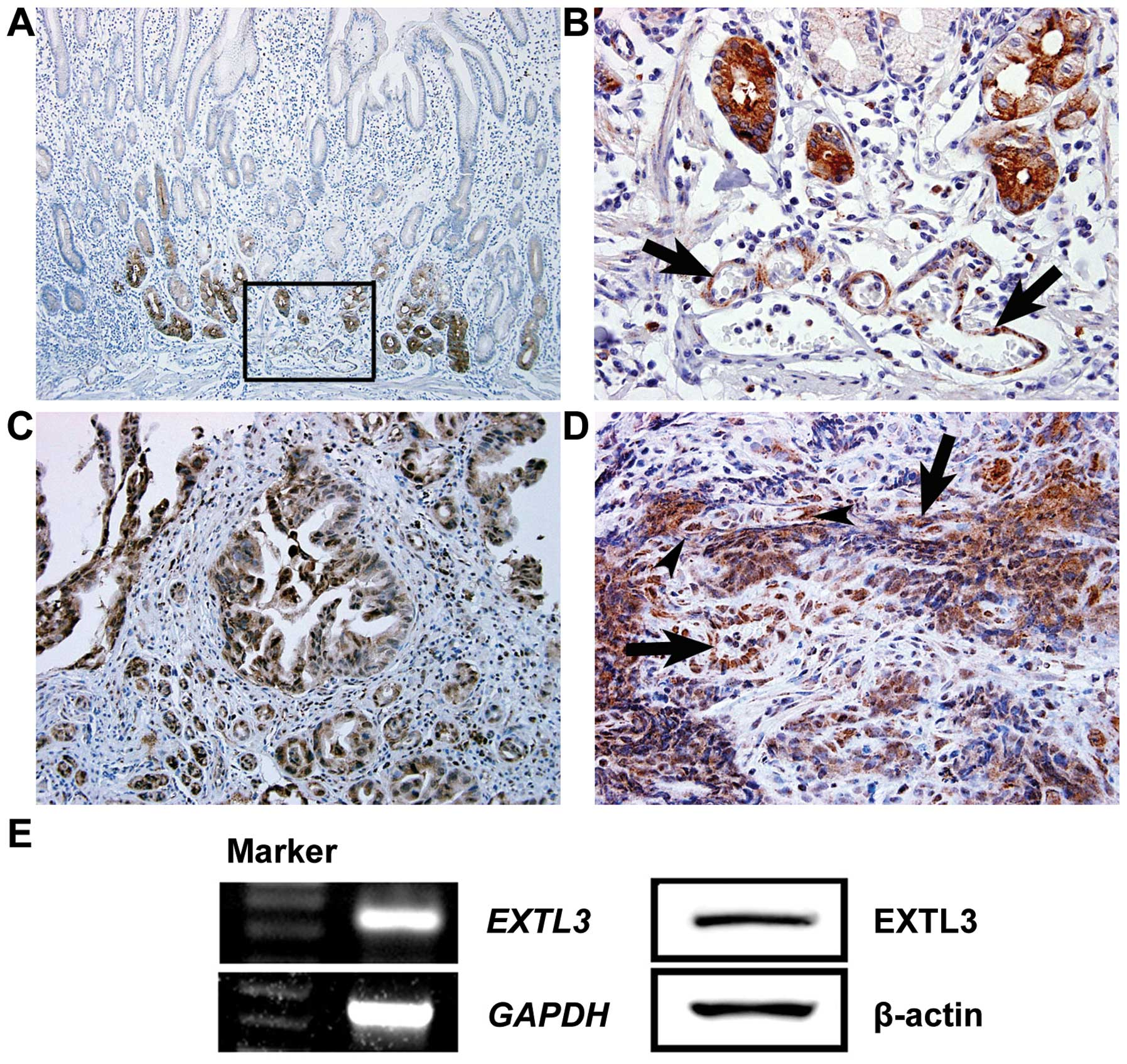 Effect of REG Iα protein on angiogenesis in gastric cancer ...