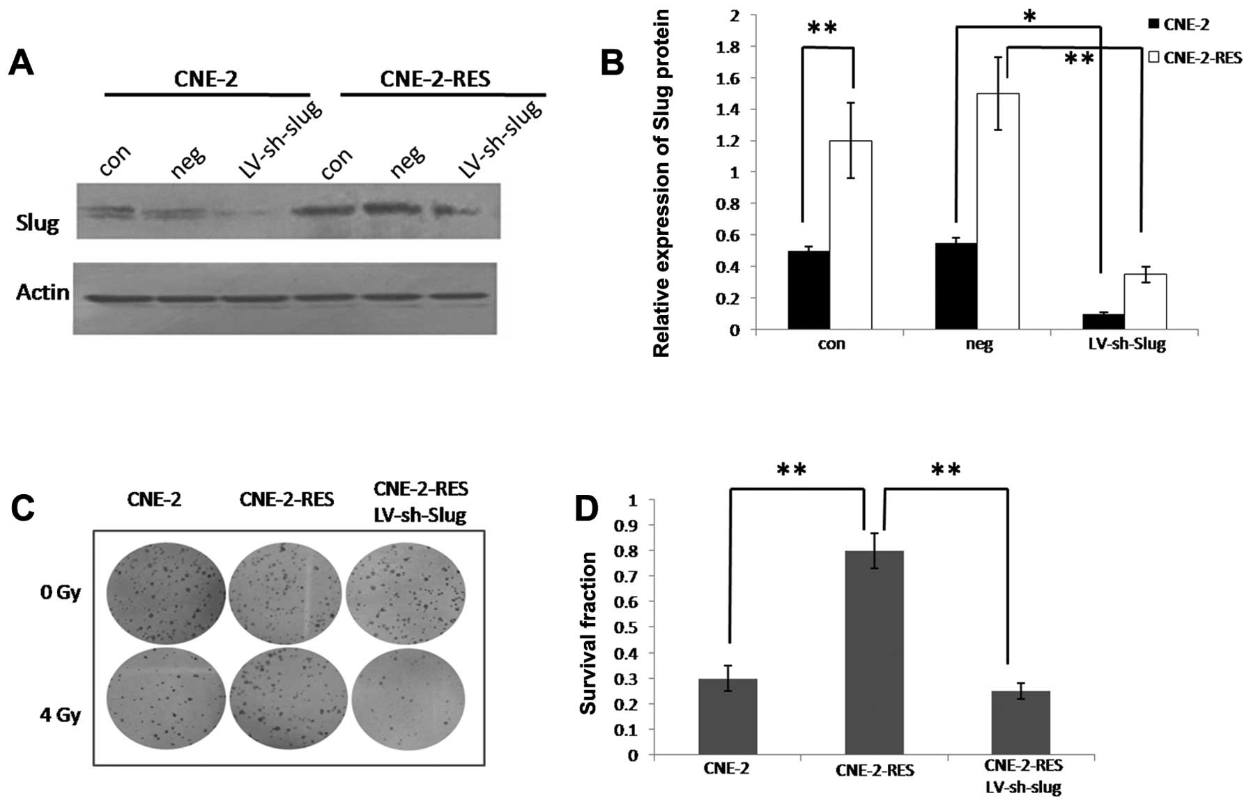 Slug mediates nasopharyngeal carcinoma radioresistance via after infection slug expression was significantly inhibited the radioresistant cne 2 res cells showed significantly increased slug expression when pooptronica