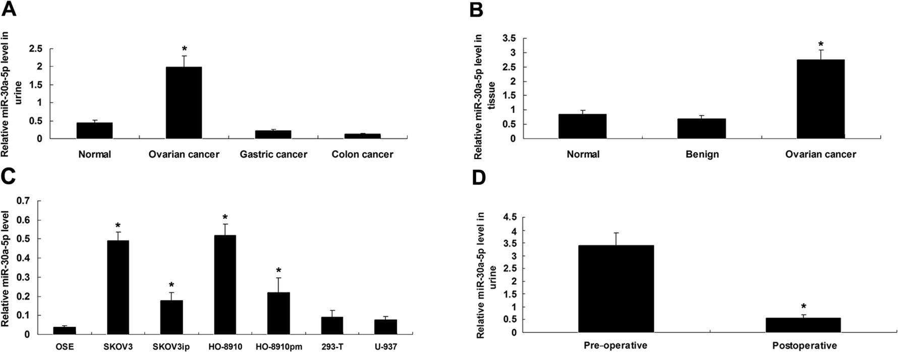 Urinary Microrna 30a 5p Is A Potential Biomarker For Ovarian Serous Adenocarcinoma