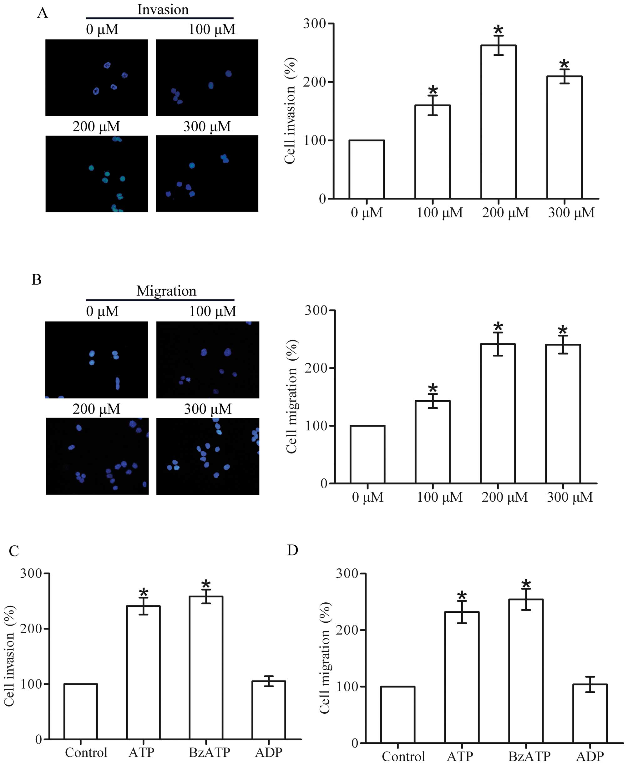 P2X7 receptor stimulates breast cancer cell invasion and