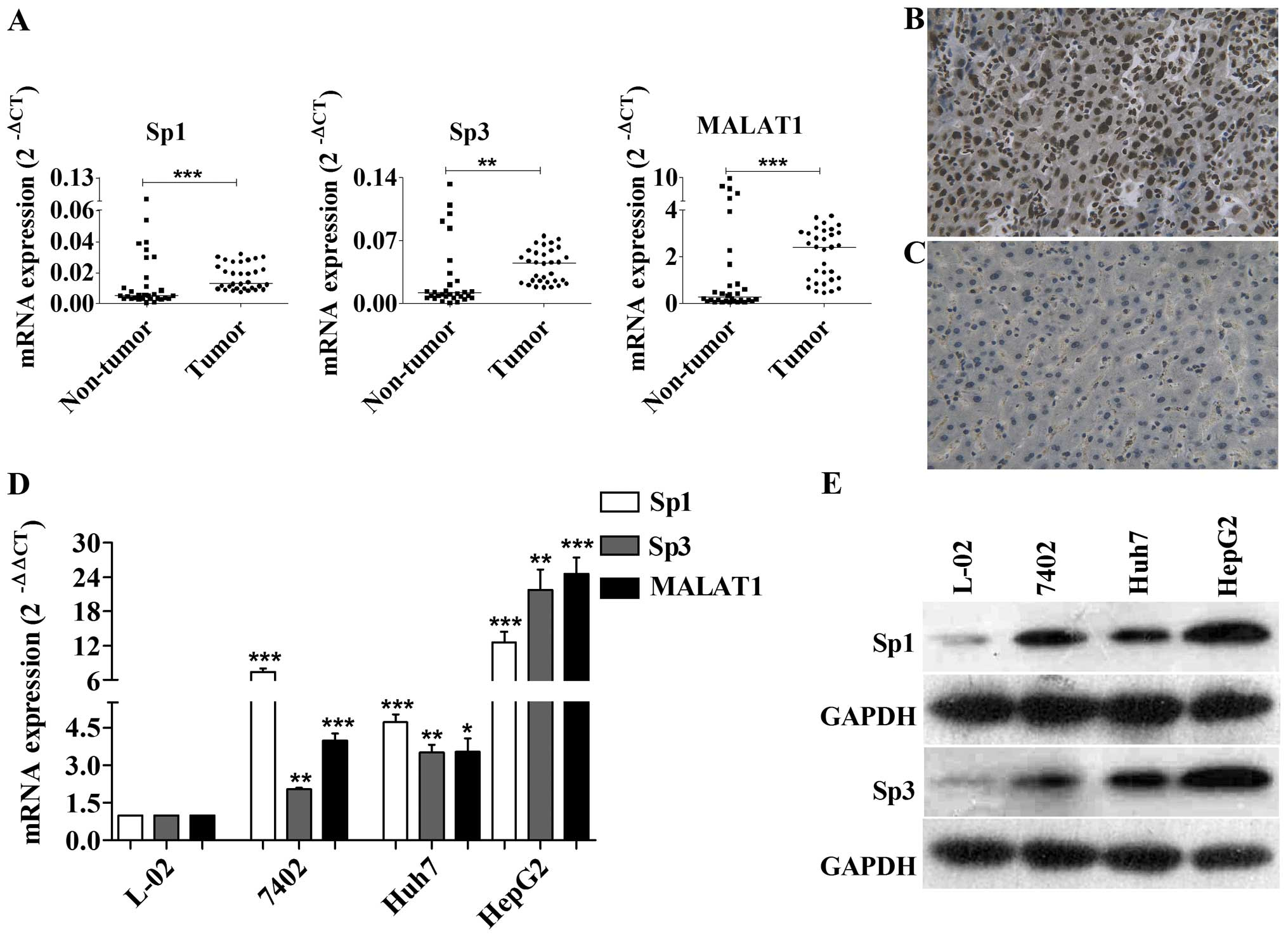 Decreased Expression of UK114 Is Related to the