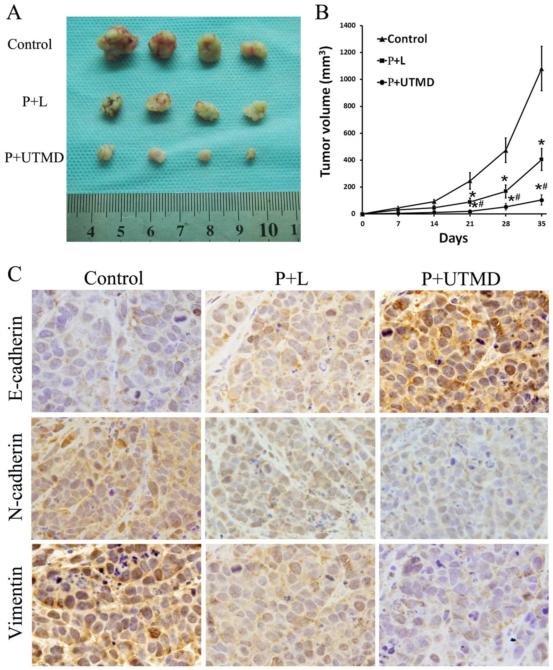 Luteolin suppresses gastric cancer progression by