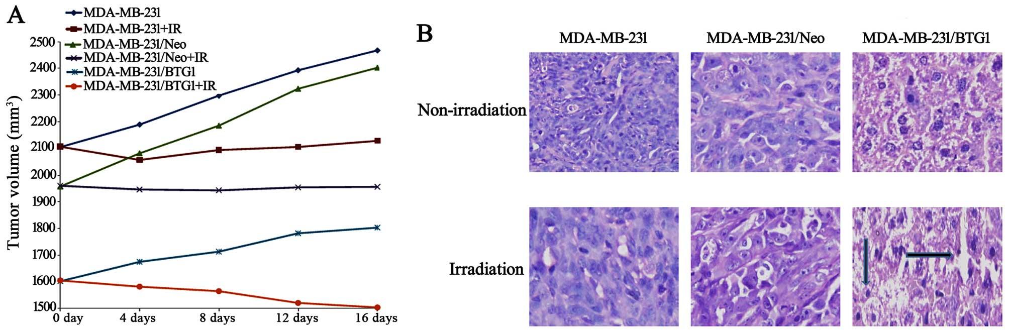 Upregulation of BTG1 enhances the radiation sensitivity of