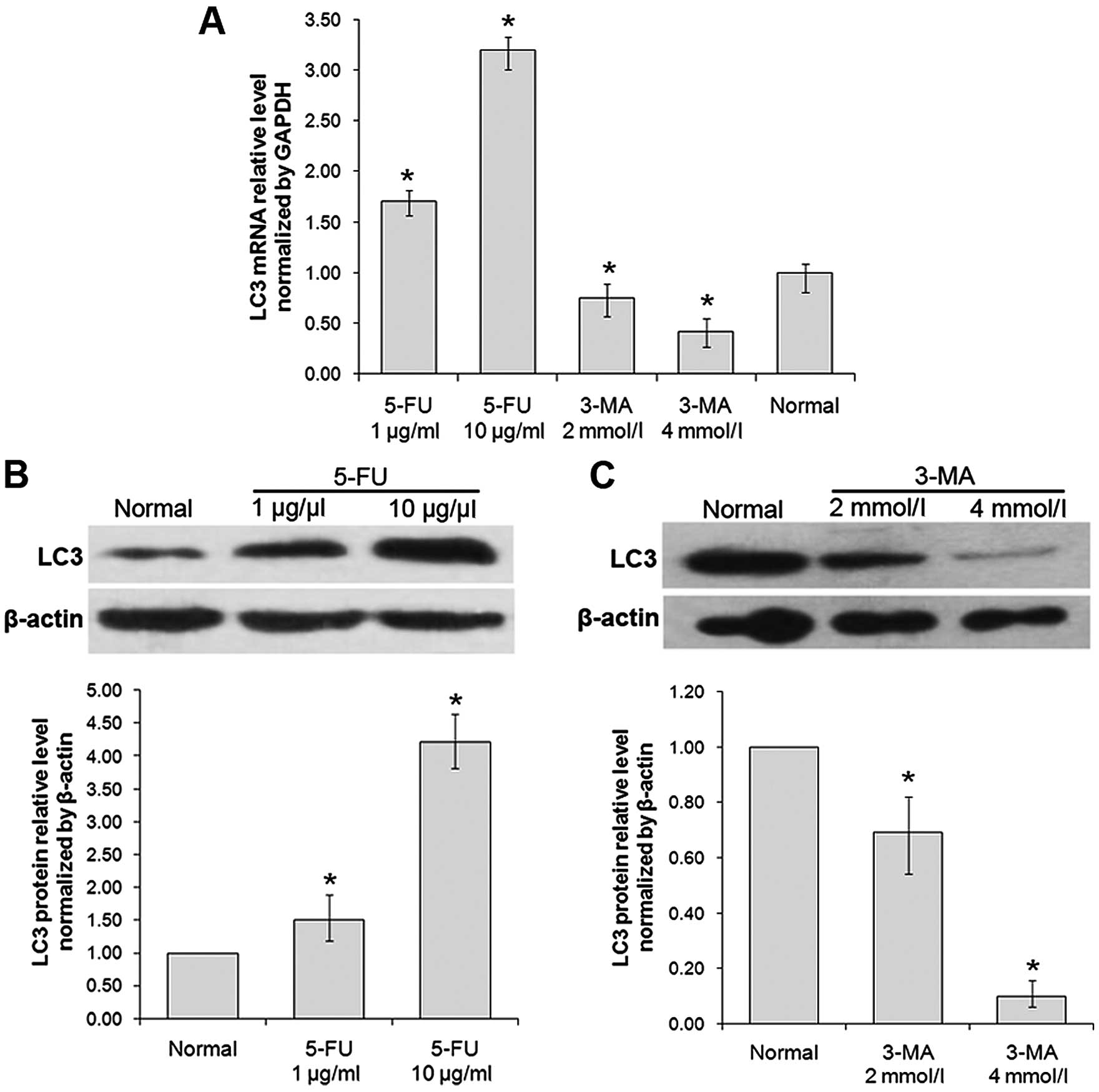 Autophagy in human skin squamous cell carcinoma: Inhibition by 3-MA