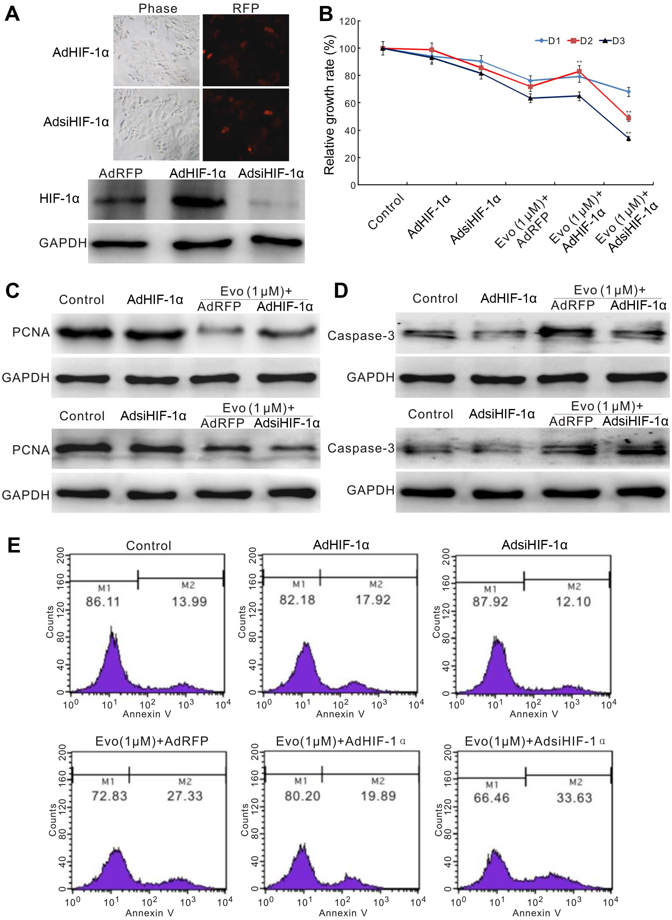 Antiproliferation Effect Of Evodiamine In Human Colon Cancer Cells Is Associated With Igf 1 Hif 1a Downregulation