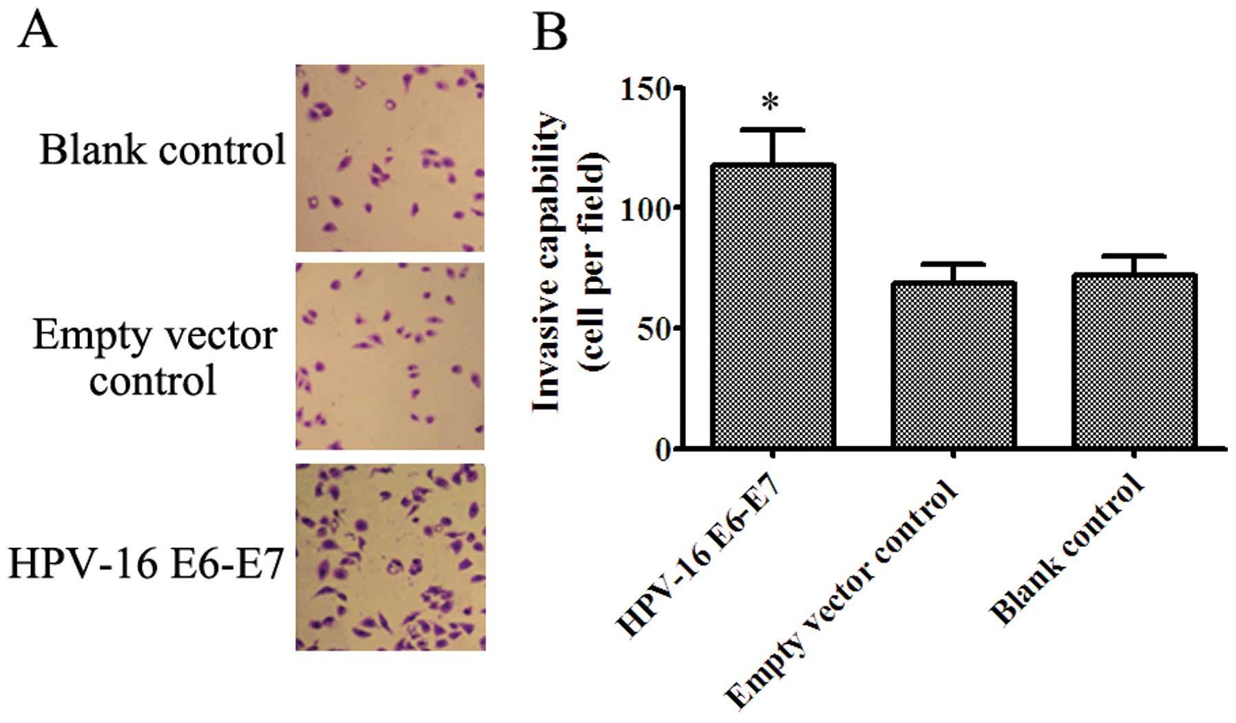 Human Papilloma Virus (HPV) - Invitro Diagnostics, Papillomavirus virus
