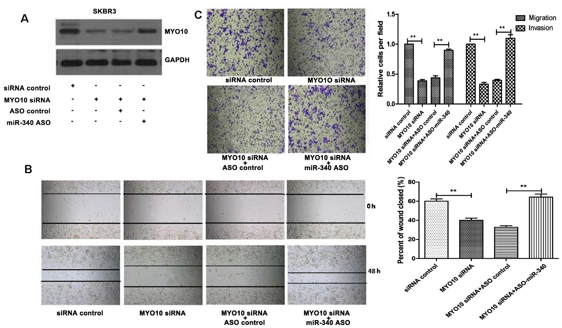miR-340 suppresses cell migration and invasion by targeting MYO10 in