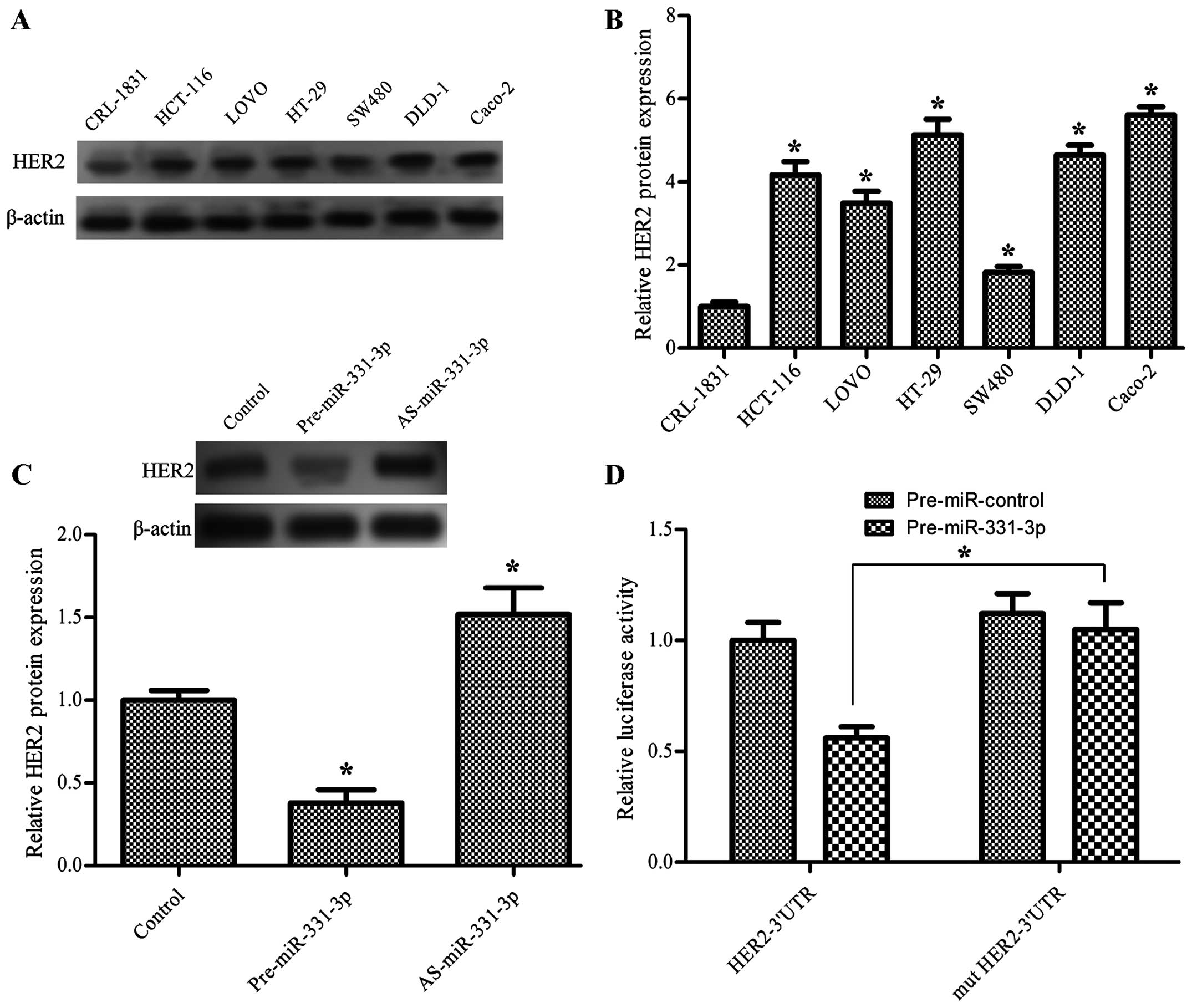 Mir 331 3p Inhibits Proliferation And Promotes Apoptosis By Targeting Her2 Through The Pi3k Akt And Erk1 2 Pathways In Colorectal Cancer