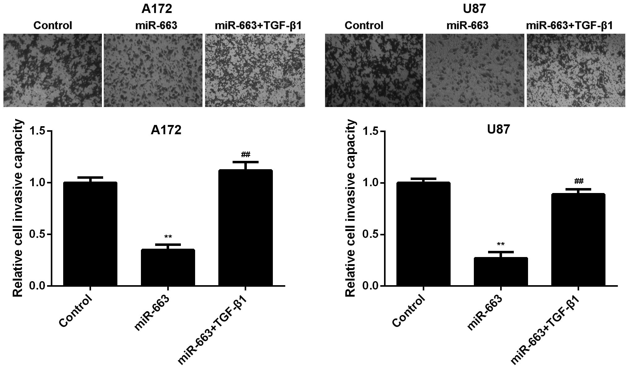 A Transwell assay was performed to determine the cell migration and  invasion of the glioblastoma A172 and U87 cells transfected with the miR-663  mimic ...