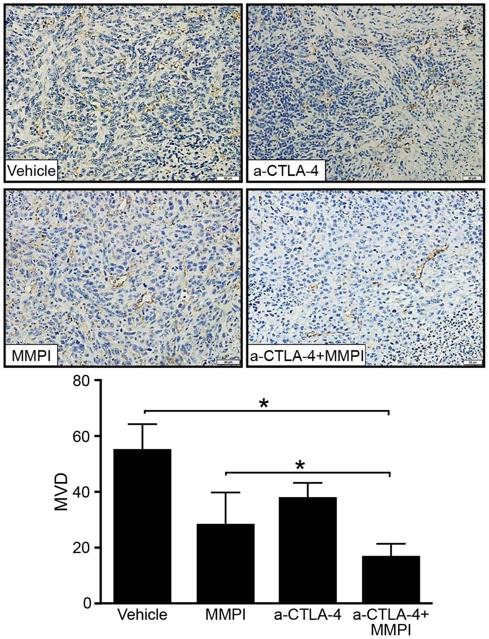 A matrix metalloproteinase inhibitor enhances anti-cytotoxic
