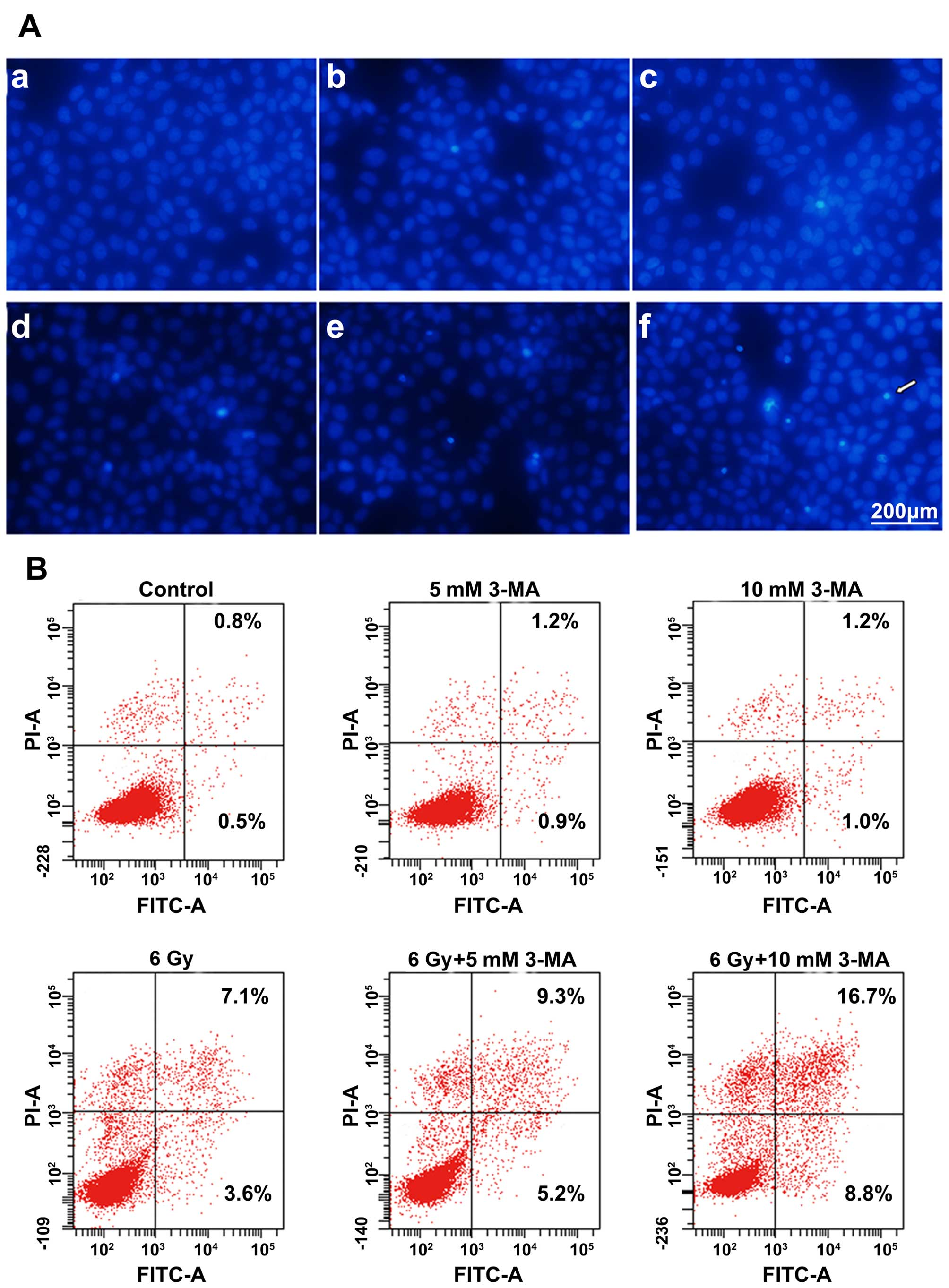 Radiation-induced autophagy promotes esophageal squamous cell