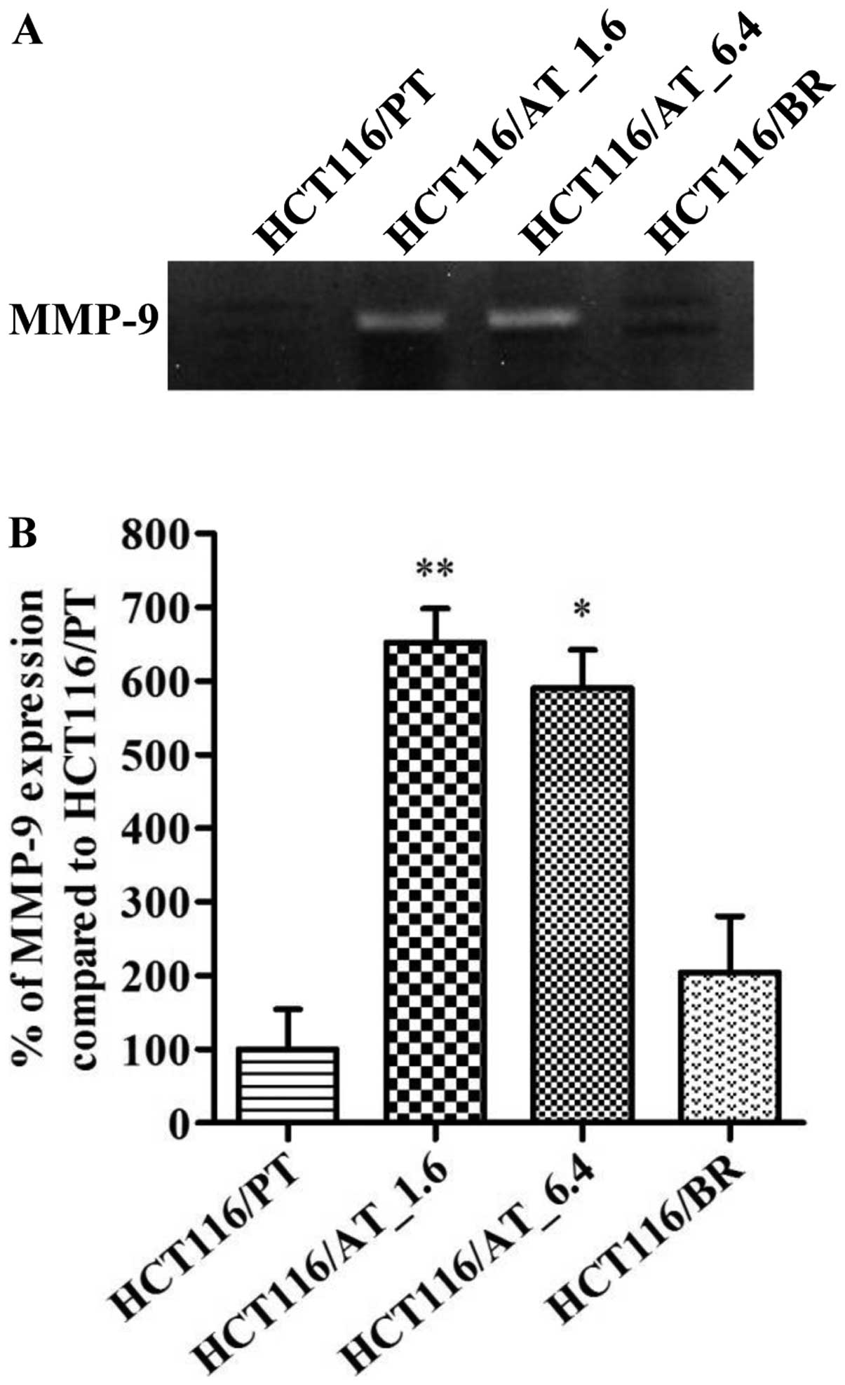Butyrate-mediated acquisition of chemoresistance by human colon