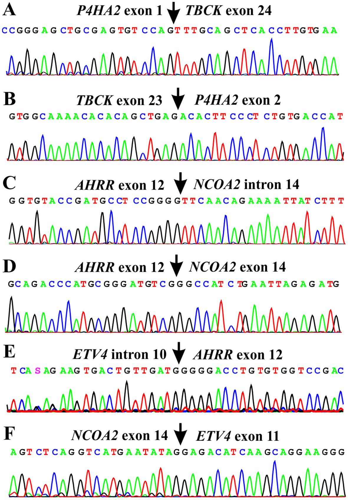 Gene fusions AHRR-NCOA2, NCOA2-ETV4, ETV4-AHRR, P4HA2-TBCK