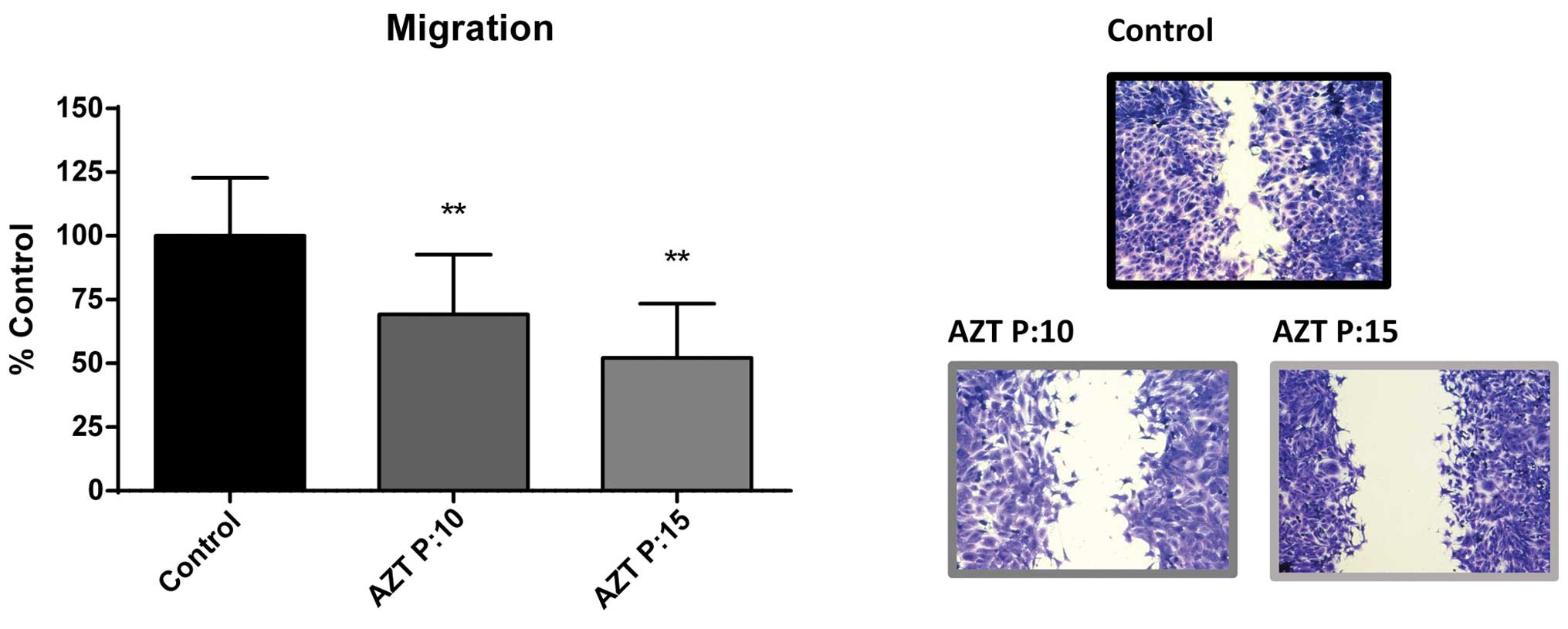 AZT exerts its antitumoral effect by telomeric and non