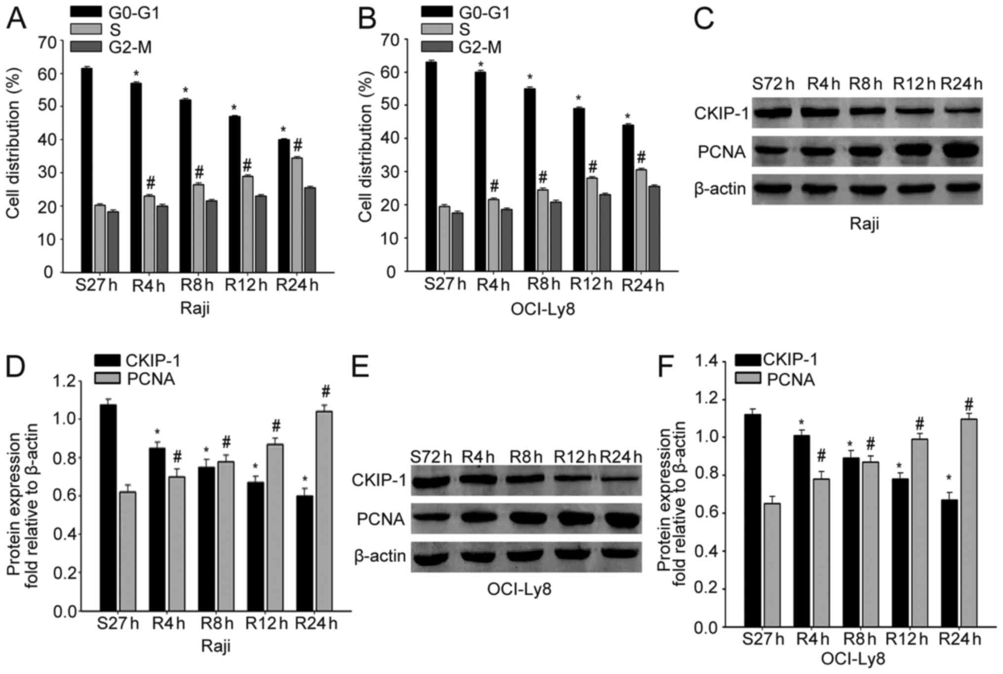 Silencing of ckip 1 promotes tumor proliferation and cell adhesion ckip 1 expression was downregulated in proliferating nhl cells a and b flow cytometry was used to analyze the cell cycle progression of raji cells or geenschuldenfo Image collections