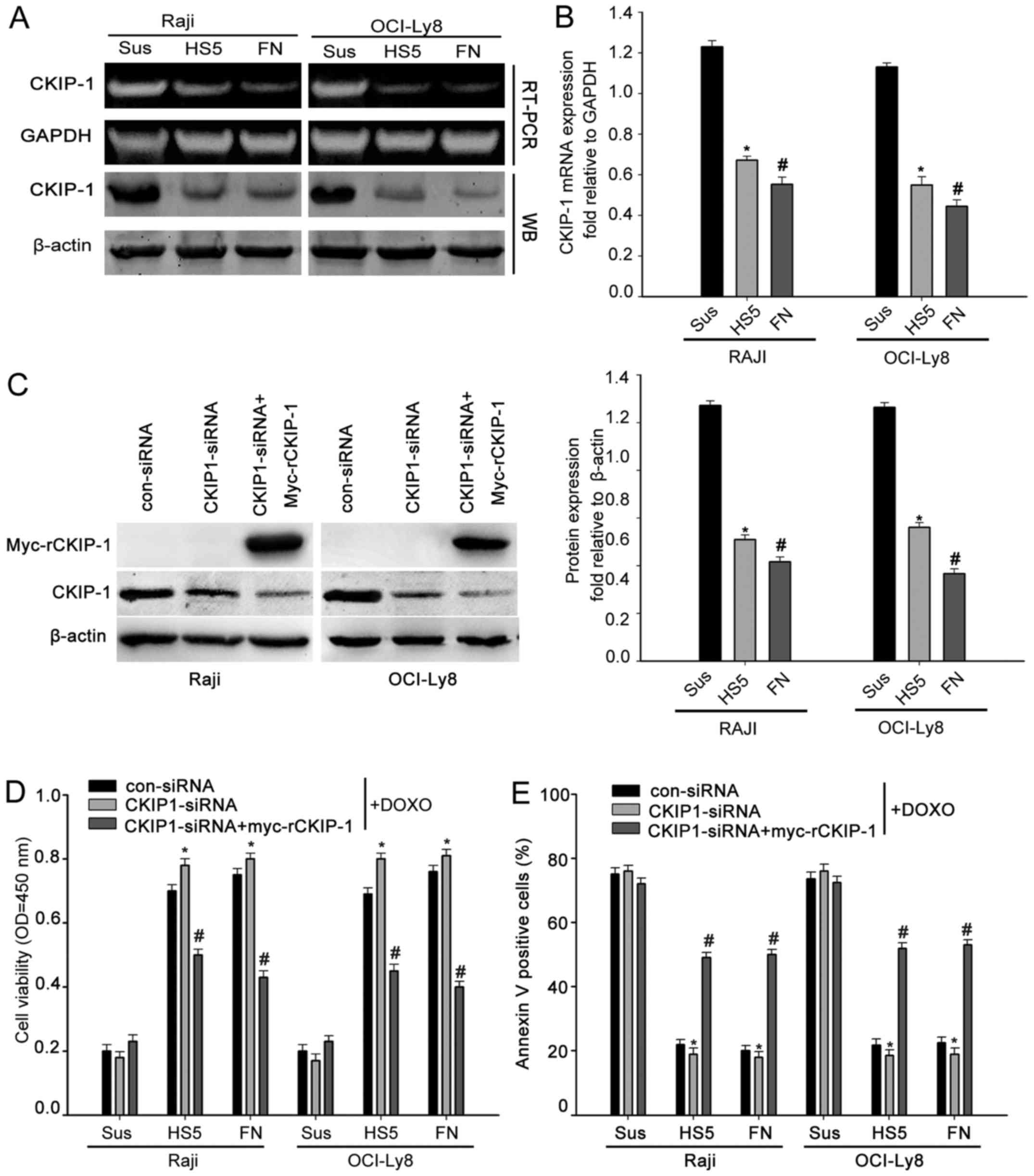 Silencing of ckip 1 promotes tumor proliferation and cell adhesion ckip 1 reverses cam dr in nhl a and b raji and oci ly8 cells were cultured in suspension or adhered to fn or hs 5 cells cells were analyzed for ckip 1 geenschuldenfo Image collections