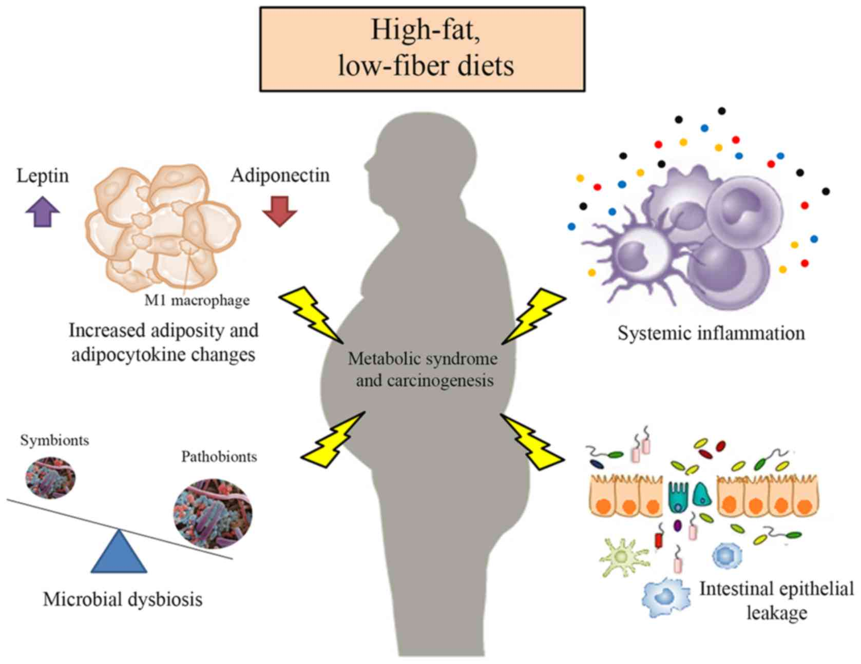 pubmed high fat diet and cancer risk