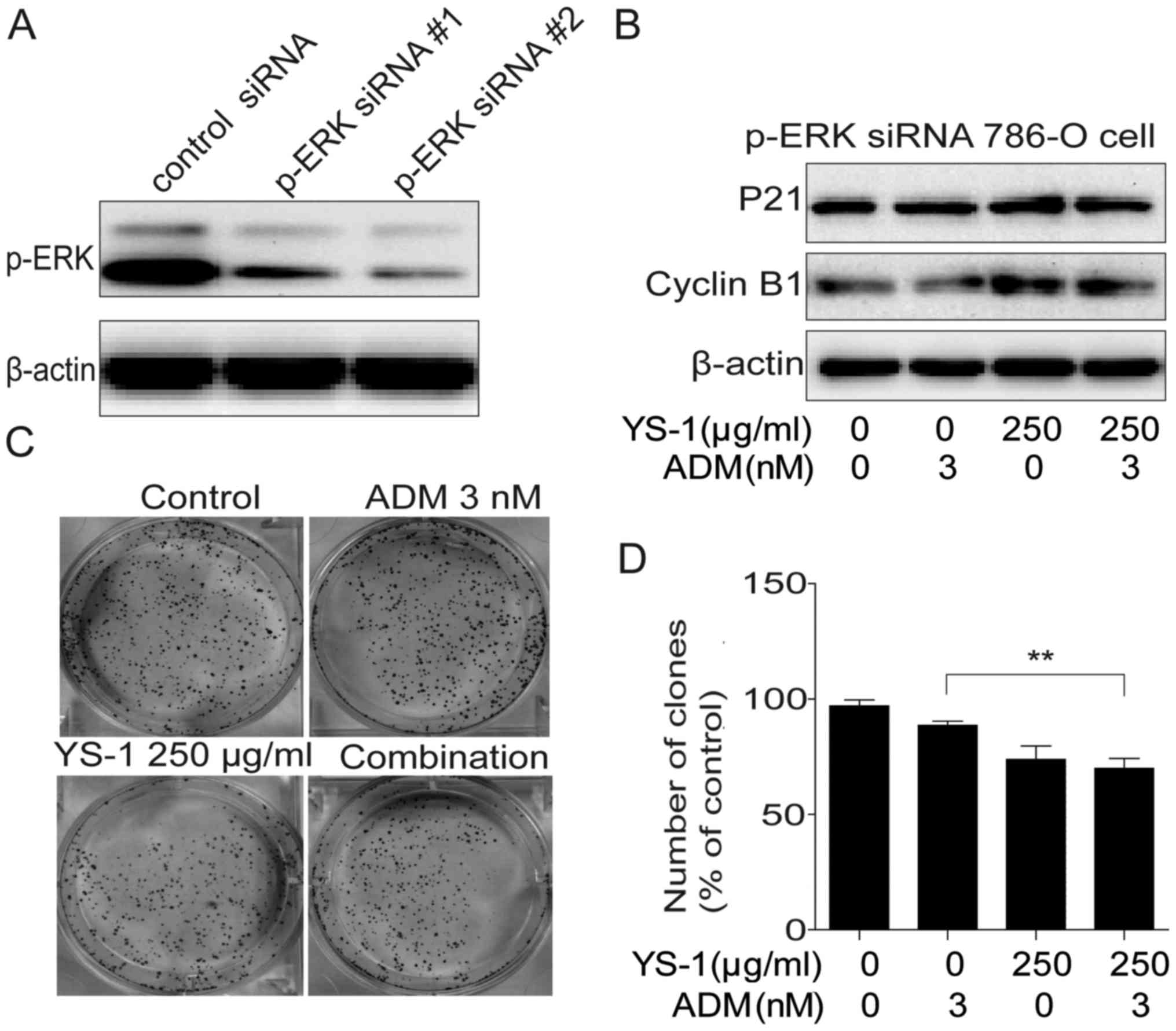 Synergistic combination of YS-1 and adriamycin inhibits