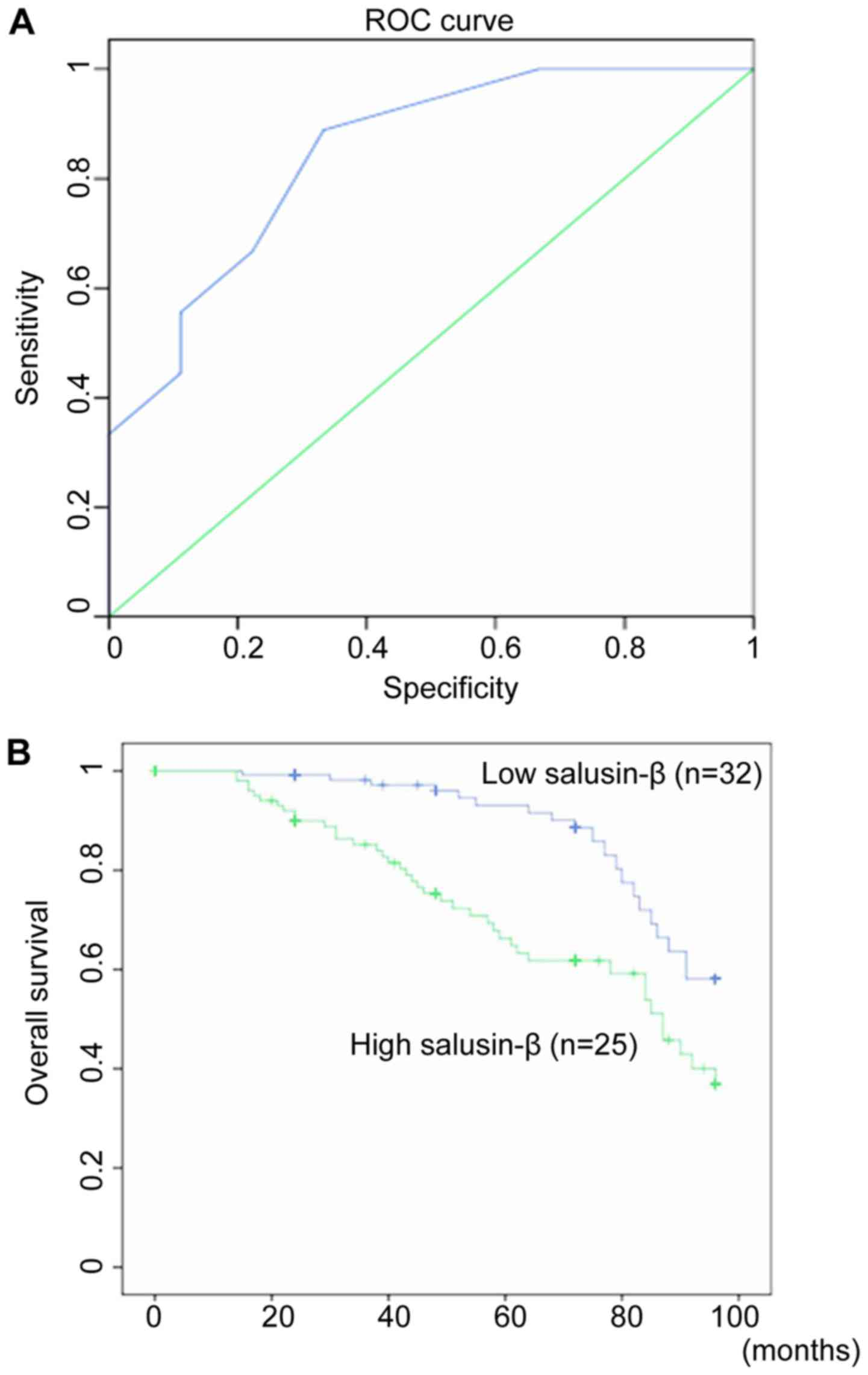 Overexpression Of Salusin B Is Associated With Poor Prognosis In Ovarian Cancer