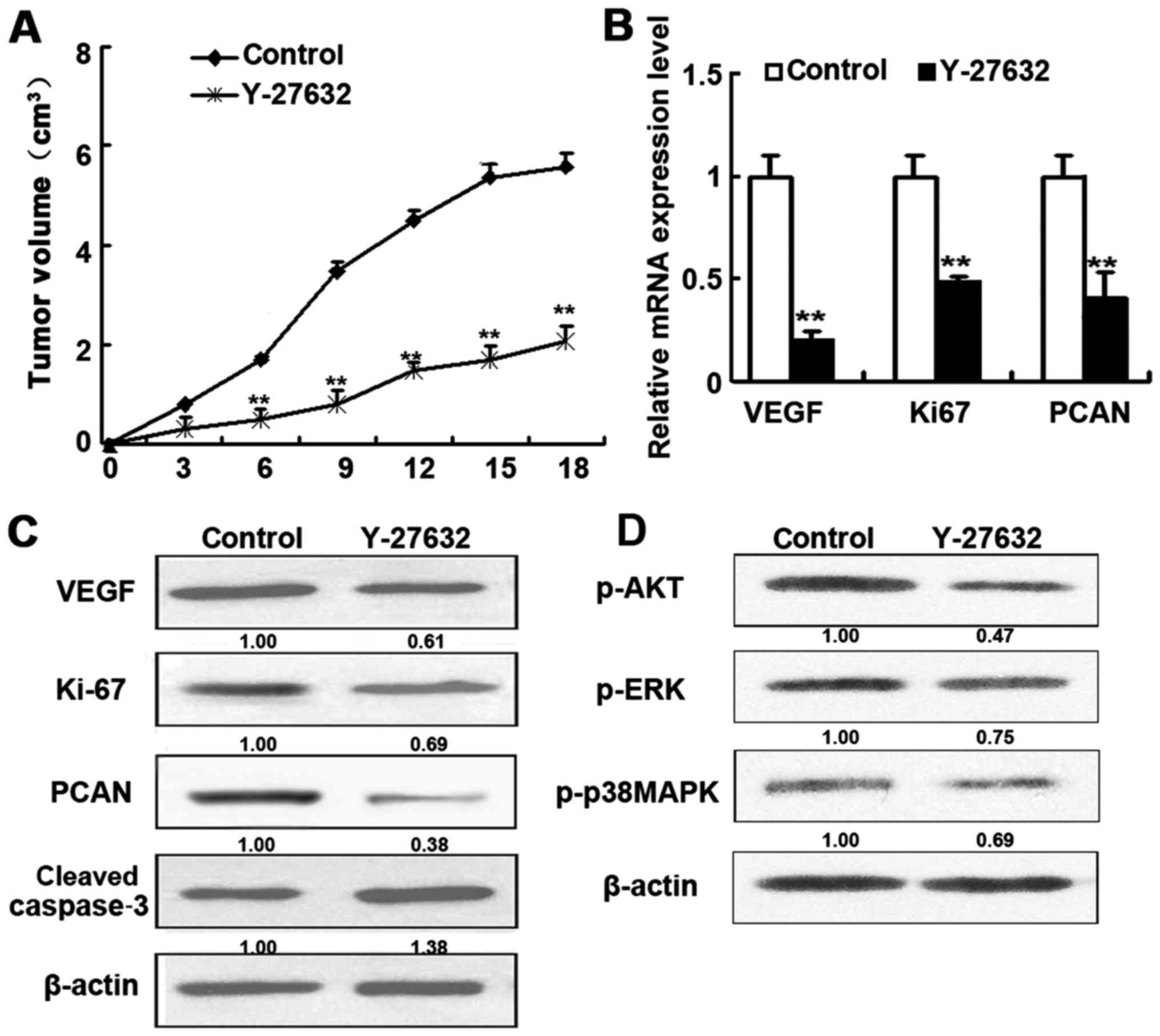 ROCK inhibition as a potential therapeutic target involved