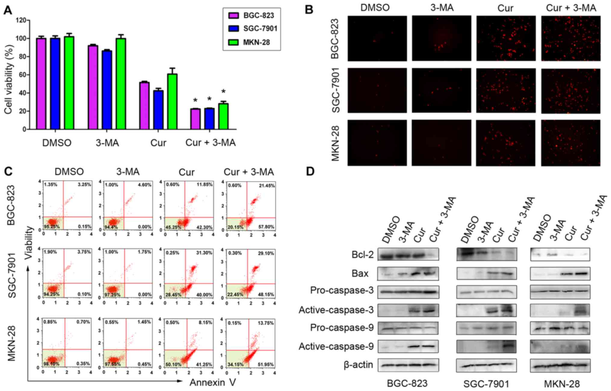 Curcumin Induces Apoptotic Cell Death And Protective Autophagy In Human Gastric Cancer Cells
