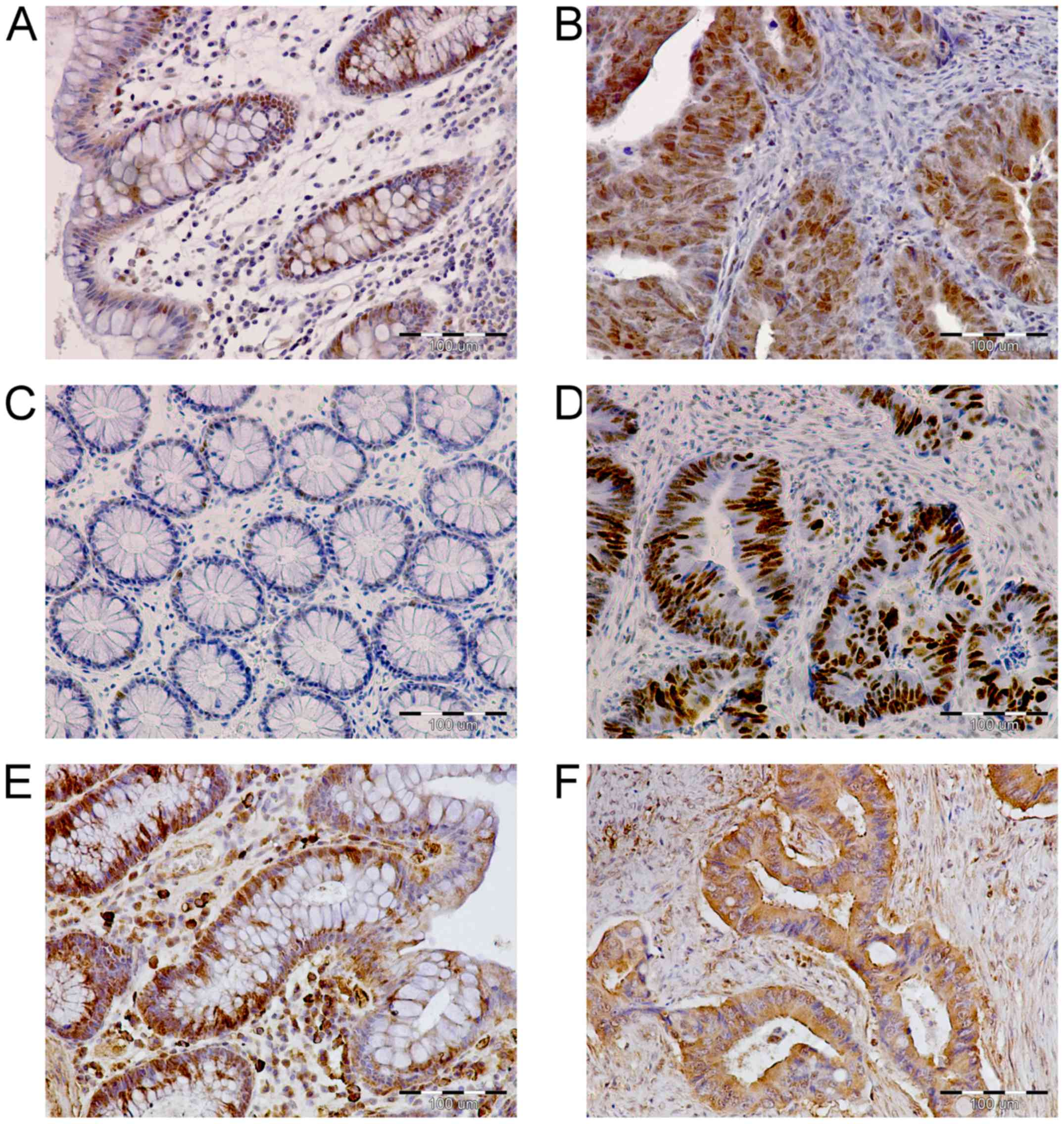 Expression of the ep300 tp53 and bax genes in colorectal cancer expression of p300 p53 and bax proteins in colorectal cancer crc and unchanged colon mucosa as assessed by immunohistochemistry biocorpaavc