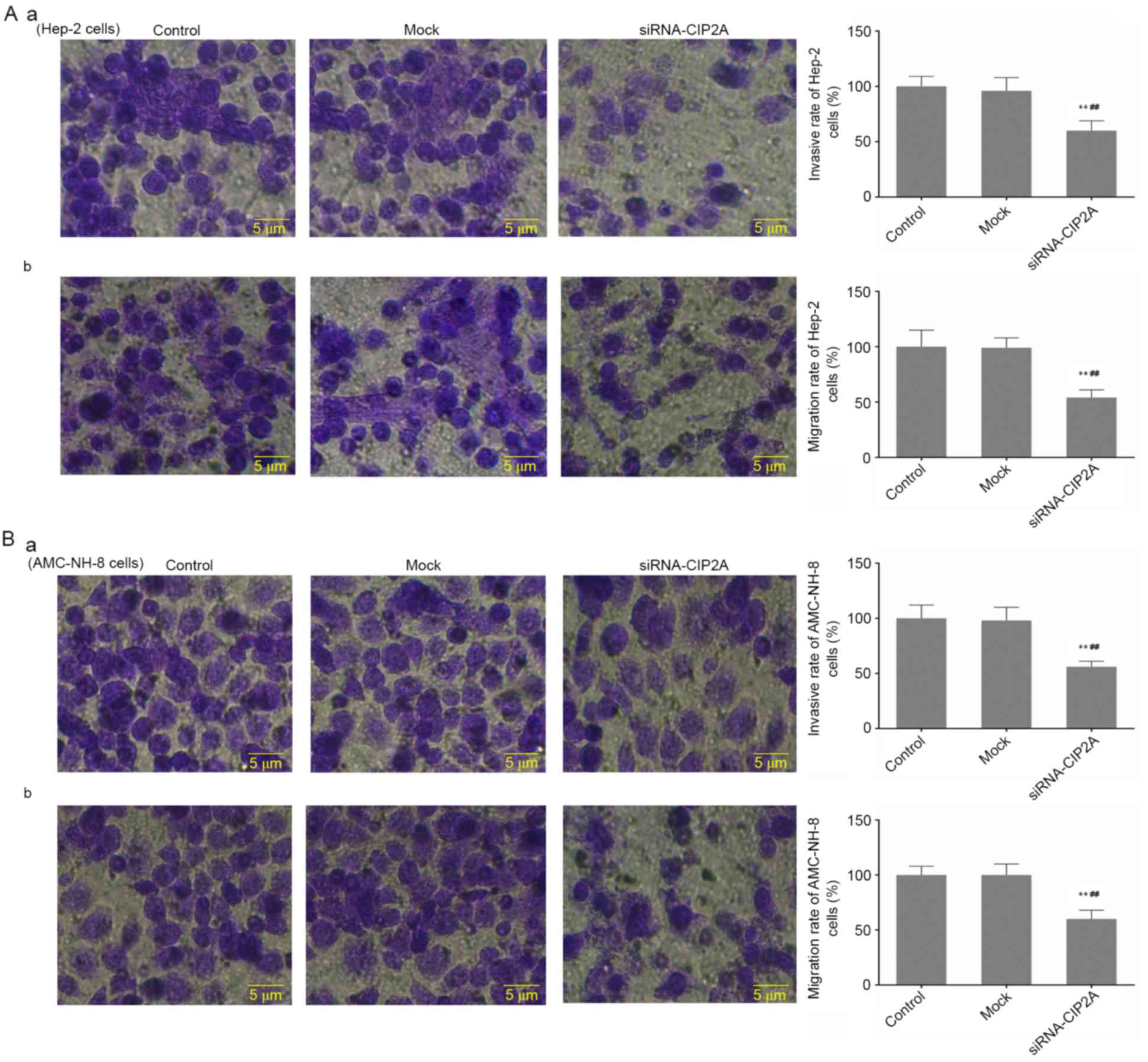 Cip2a An Oncoprotein Is Associated With Cell Proliferation Motion Sensor Switch Ningbo Kingho Imp Exp Coltd Change In The Invasion And Migration On Sirna Transfection Of Hep 2 Cells Amc Nh 8 Aa B Transwell Assay