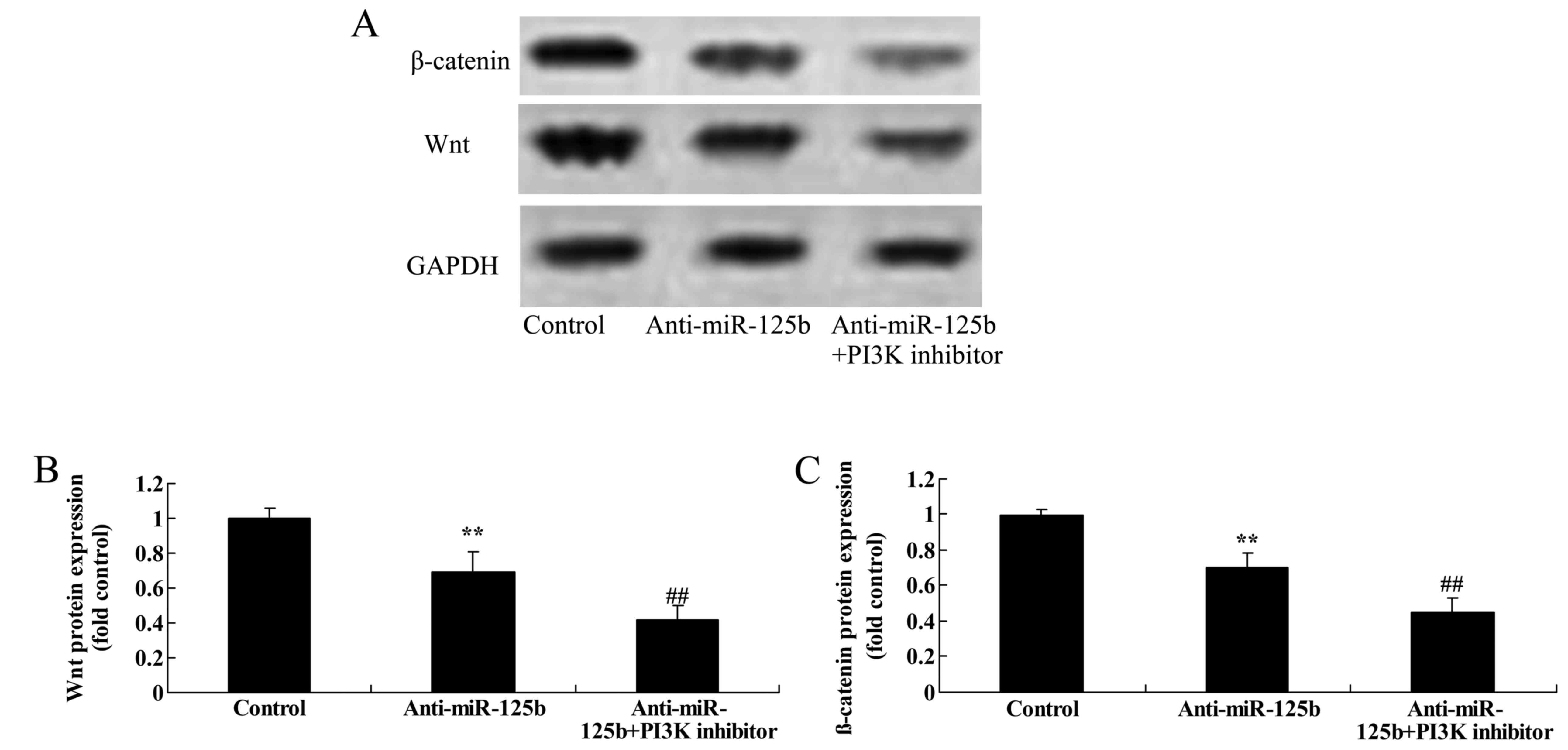 Mirna 125b Regulates Apoptosis Of Human Non Small Cell Lung