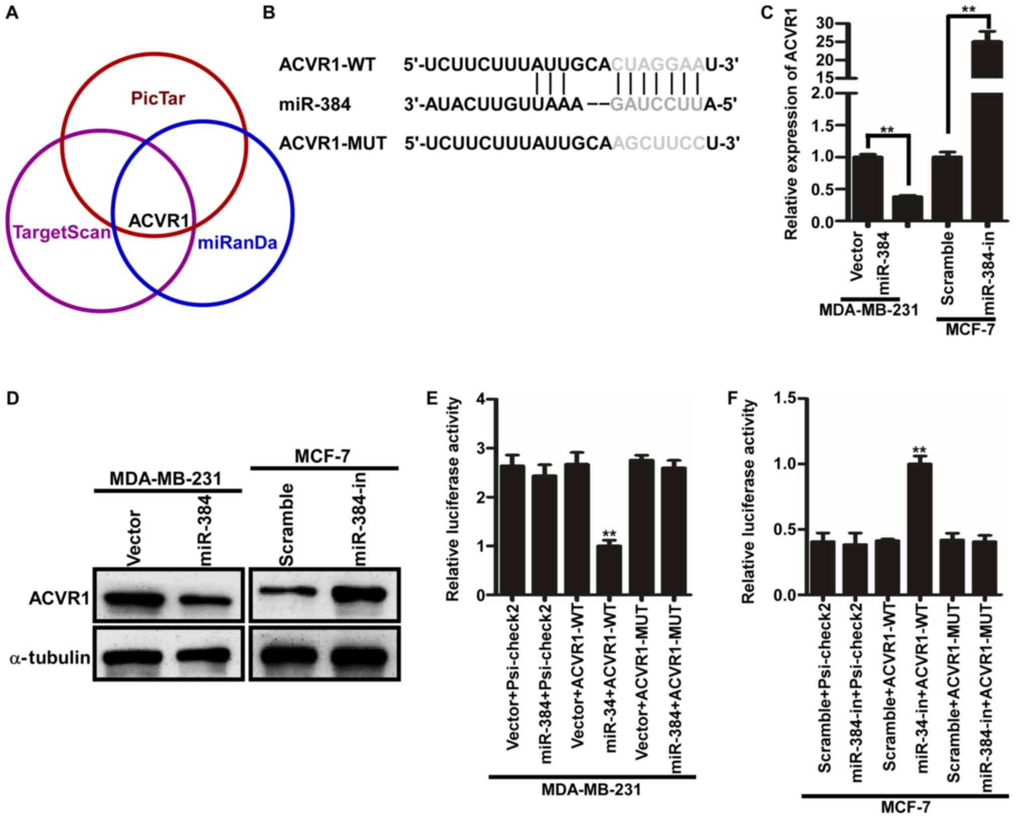 MicroRNA-384 inhibits the progression of breast cancer by targeting