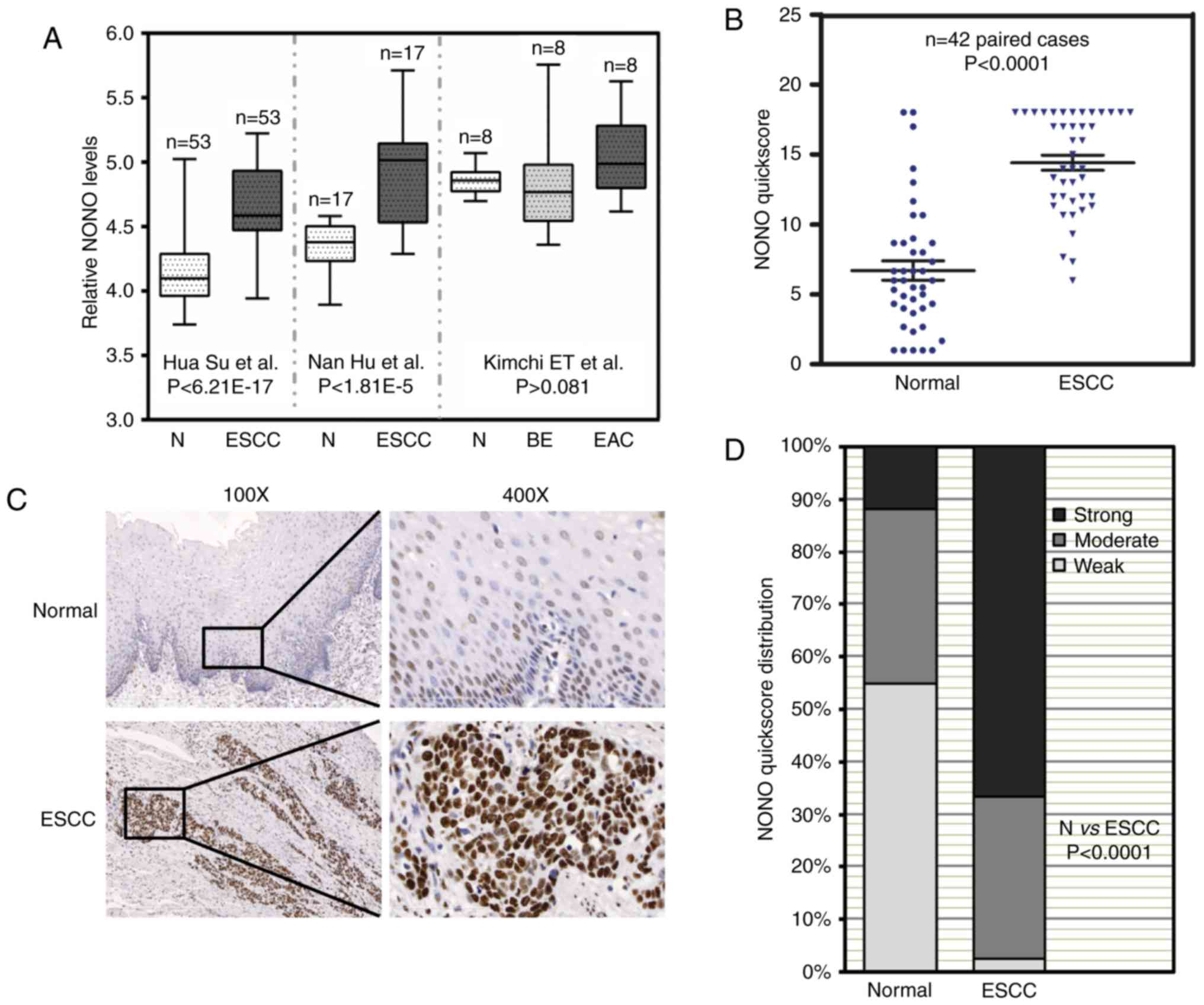 Downregulation Of Nono Induces Apoptosis Suppressing Growth And Clifford Matrix 1 Wiring Diagram Figure Increased Expression In Escc Tissue Samples A Three Independent Microarray Data From The Oncomine Database Showed That Mrna Levels