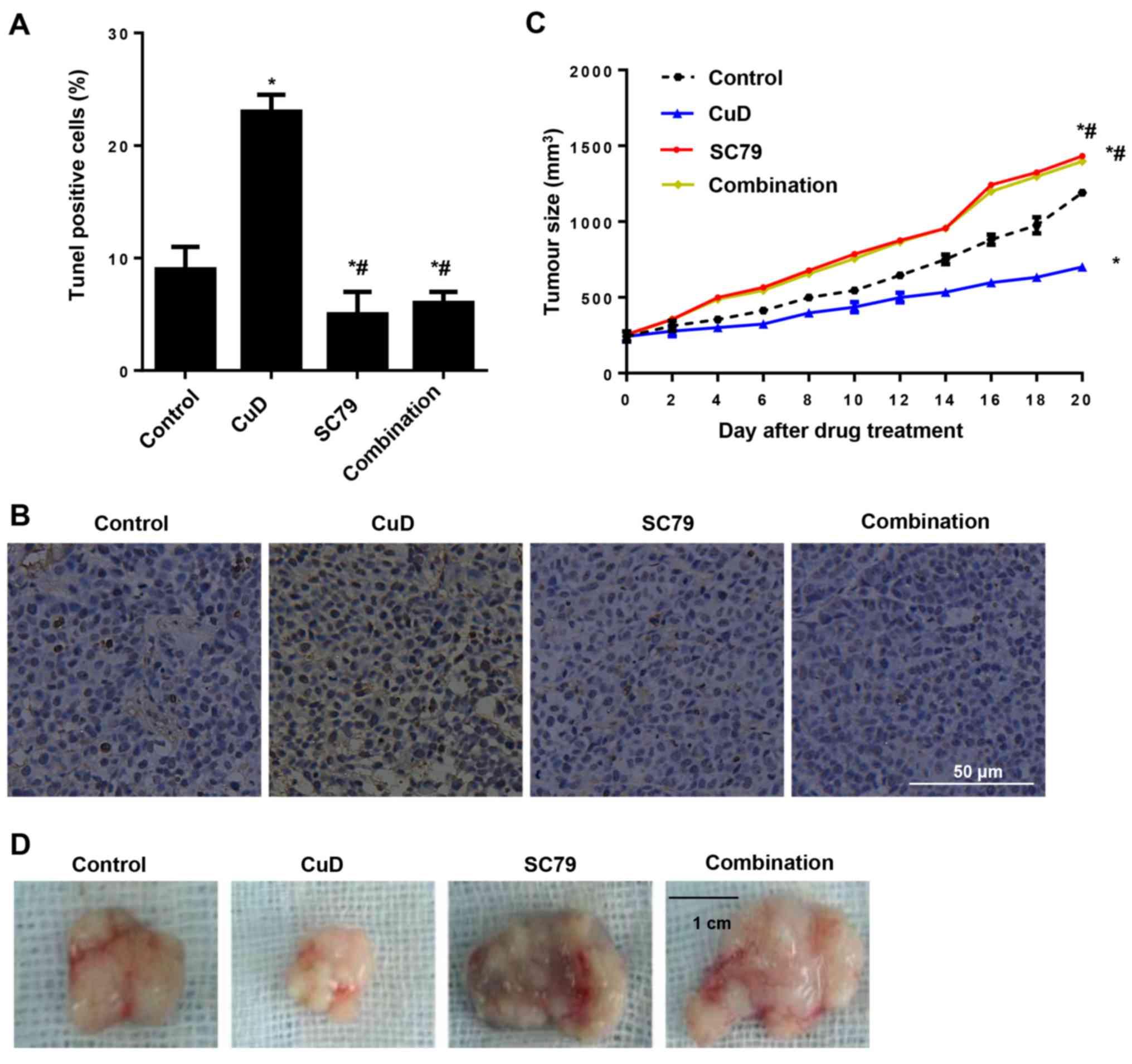 gastric cancer xenograft mouse models