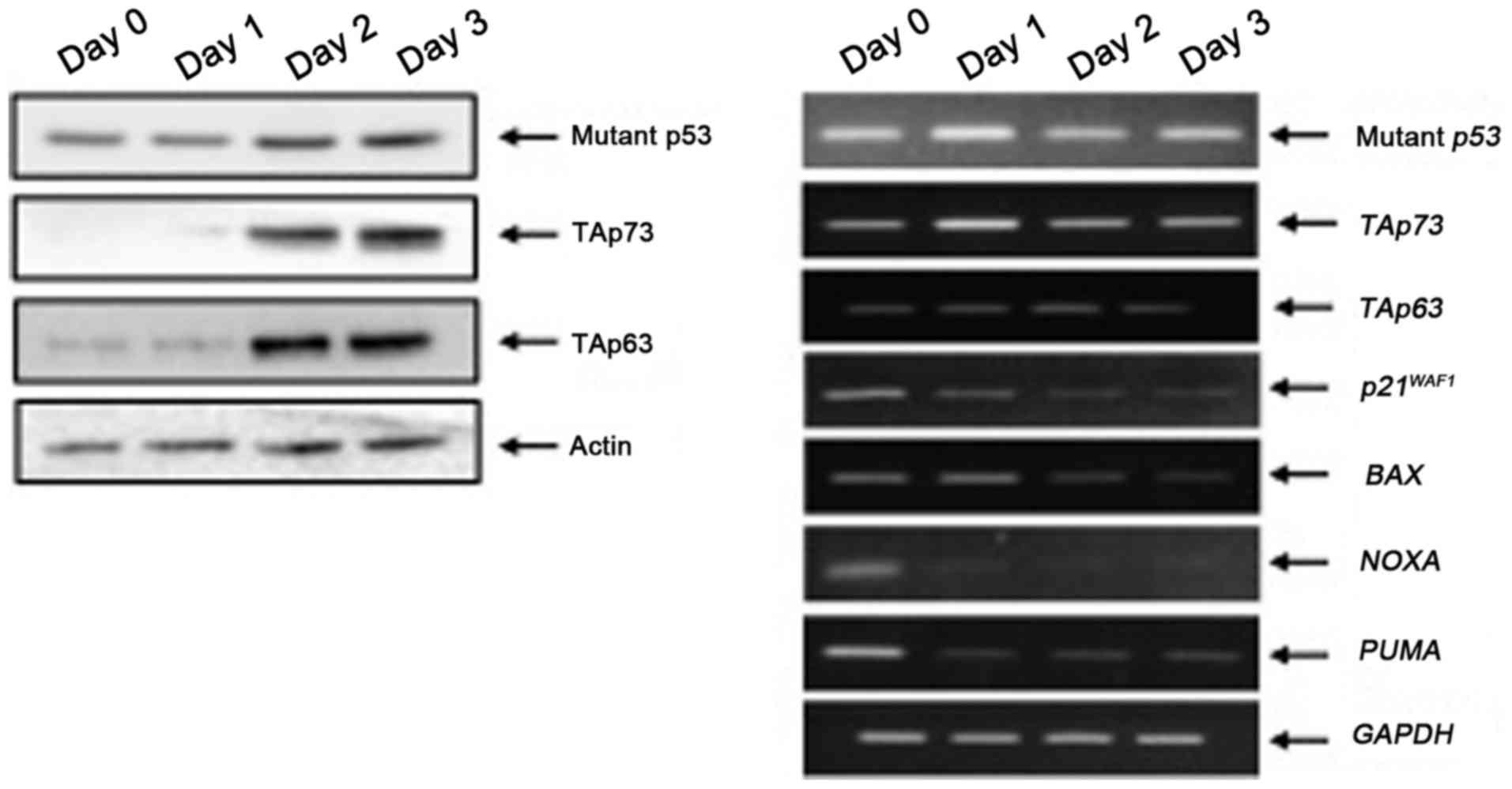 Impact of RUNX2 gene silencing on the gemcitabine